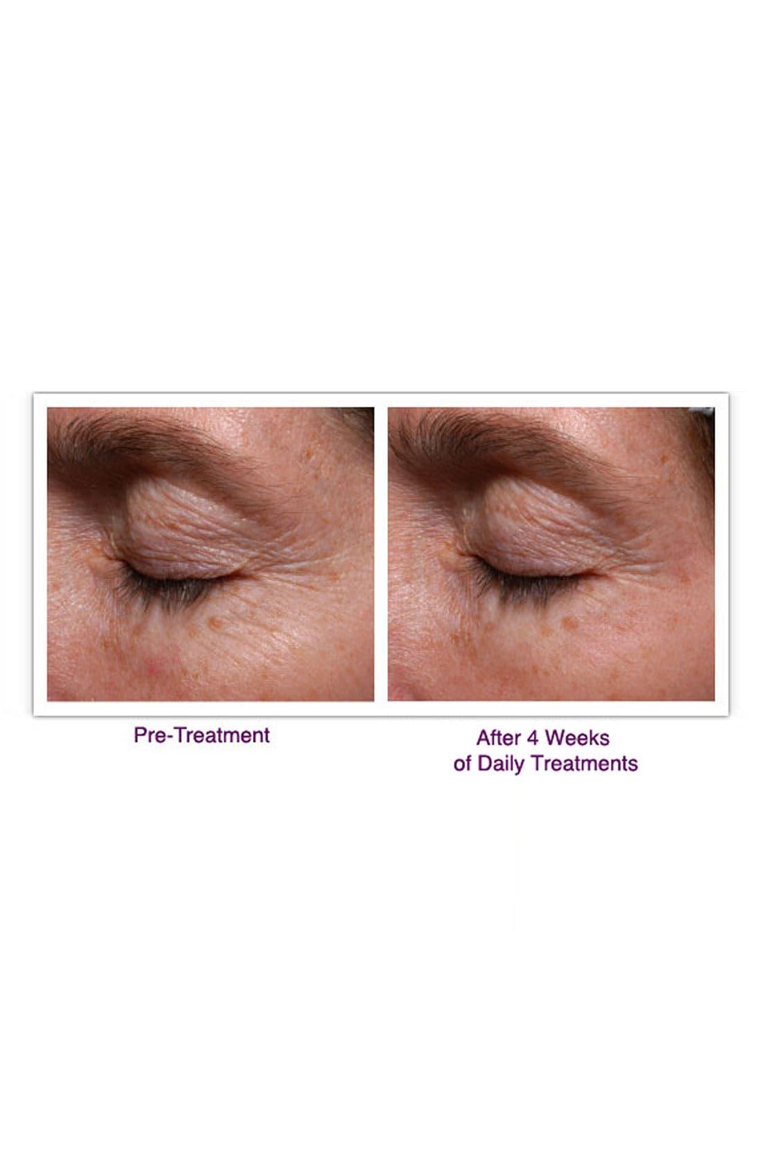 PALOVIA<SUP>®</SUP>,                             Skin Renewing Laser<sup>®</sup>,                             Alternate thumbnail 2, color,                             000