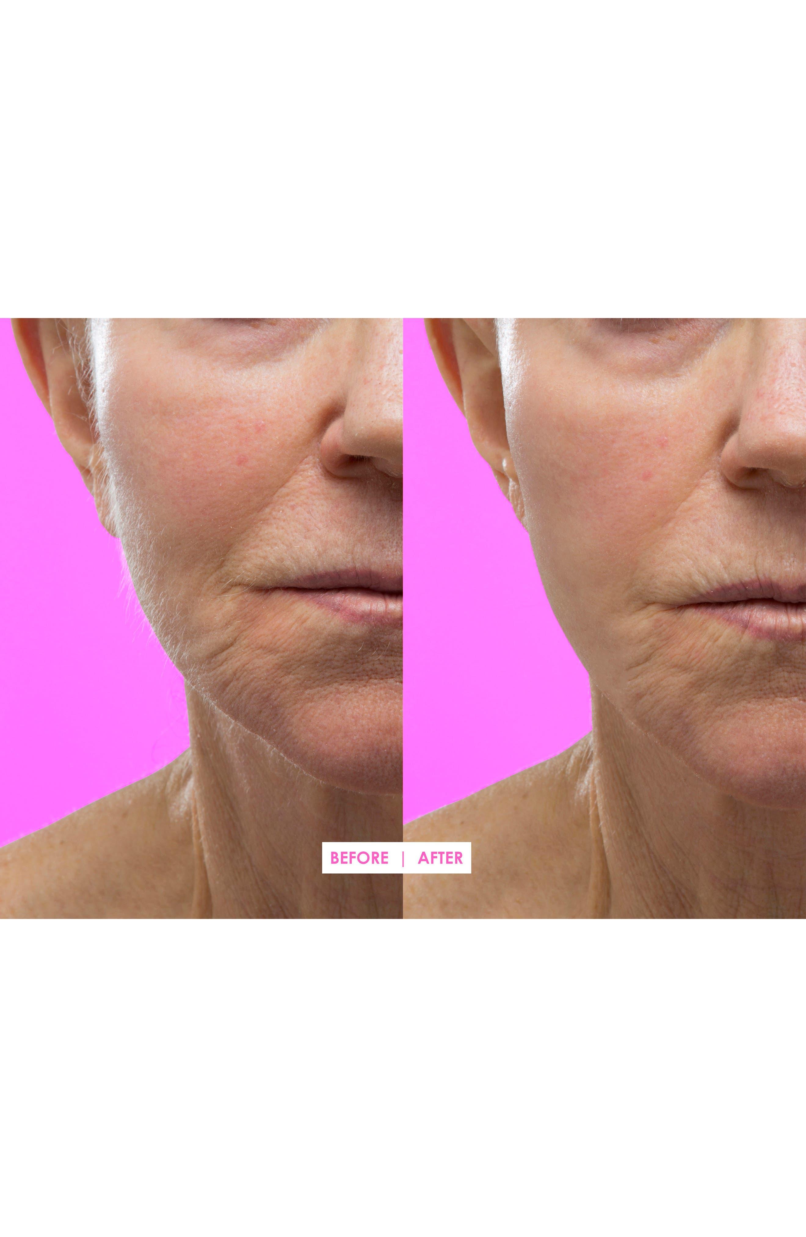 Hot Pink Facial Exfoliating Device,                             Alternate thumbnail 5, color,                             000