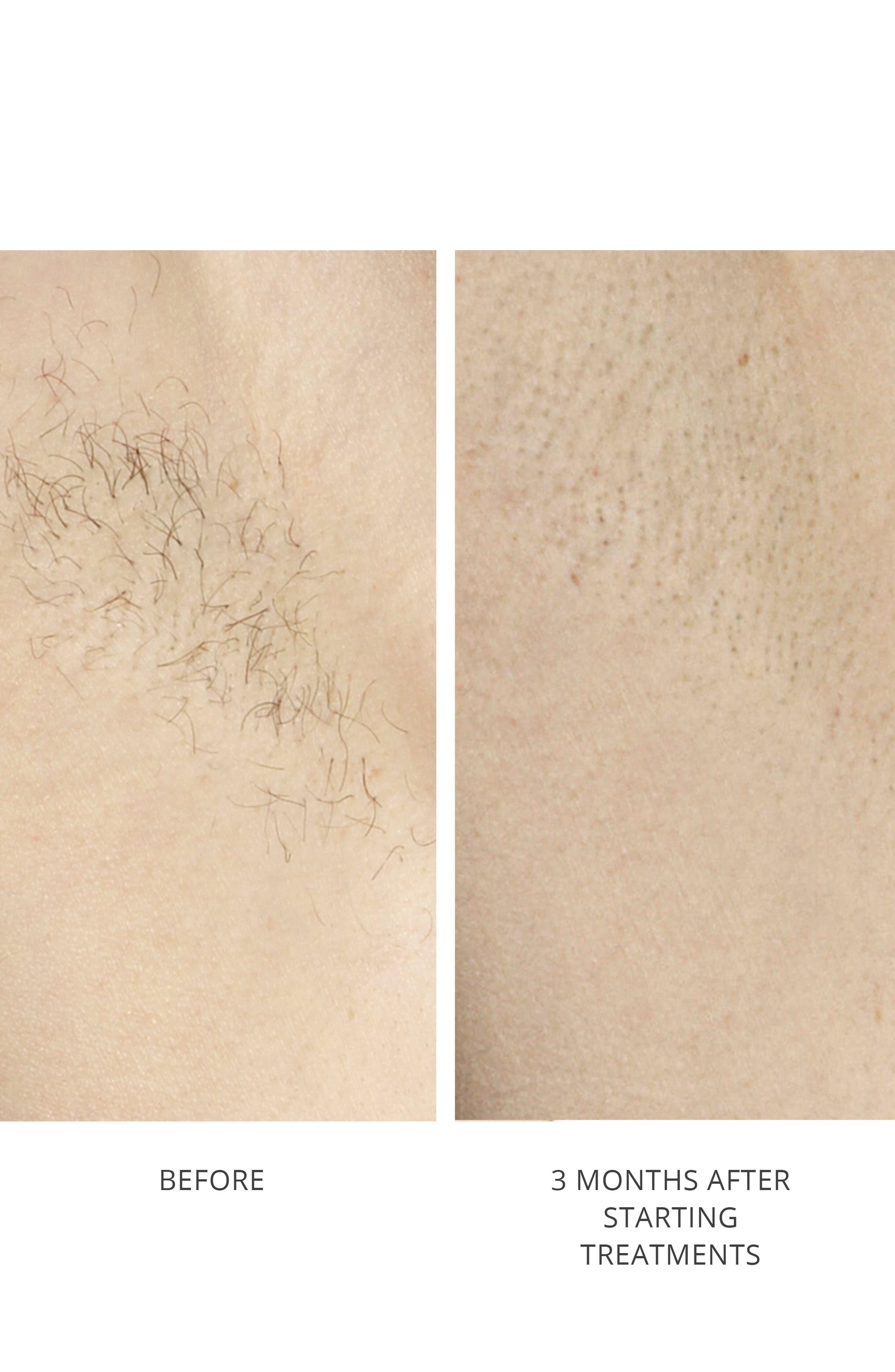 Hair Removal Laser Precision Device,                             Alternate thumbnail 4, color,                             DOVE
