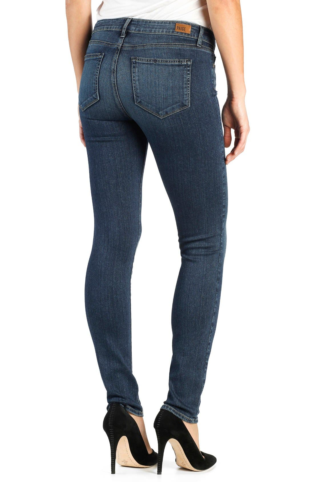 Transcend Skyline Skinny Jeans,                             Alternate thumbnail 2, color,                             BRENTYN