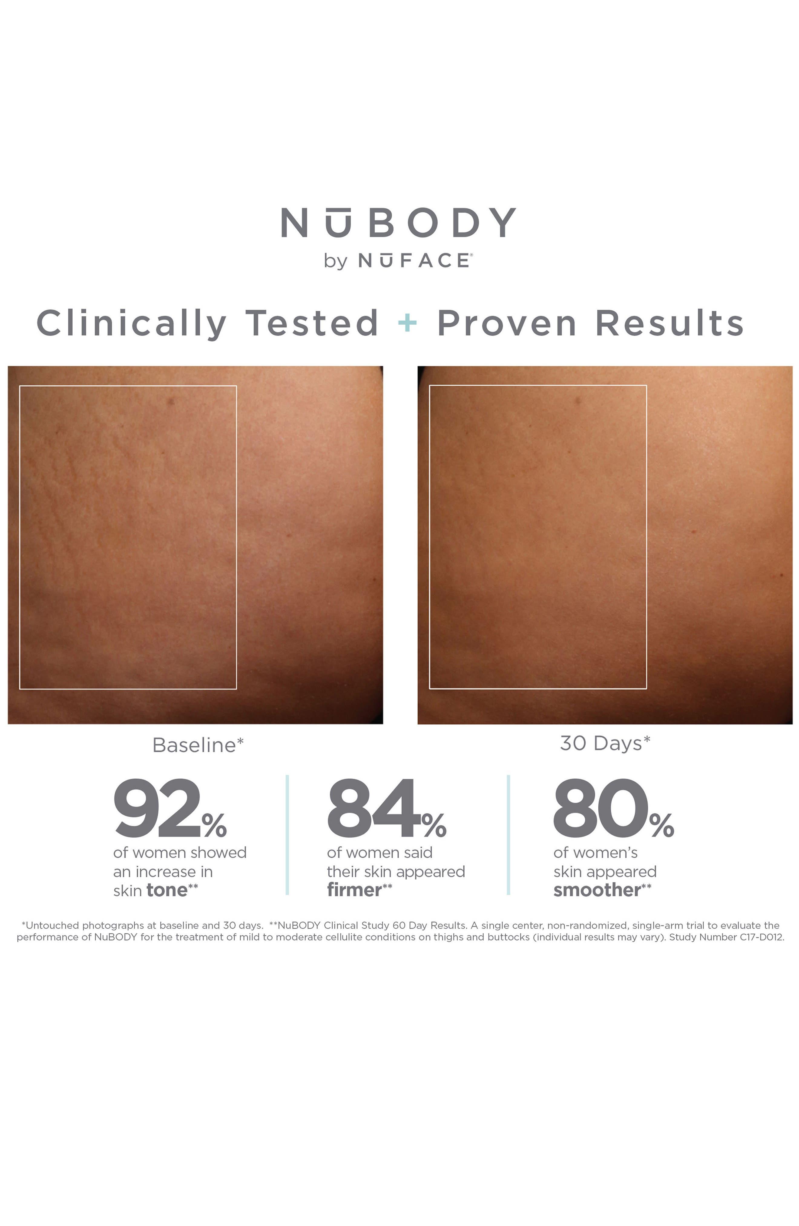 NuBODY Skin Toning Device,                             Alternate thumbnail 5, color,                             NO COLOR