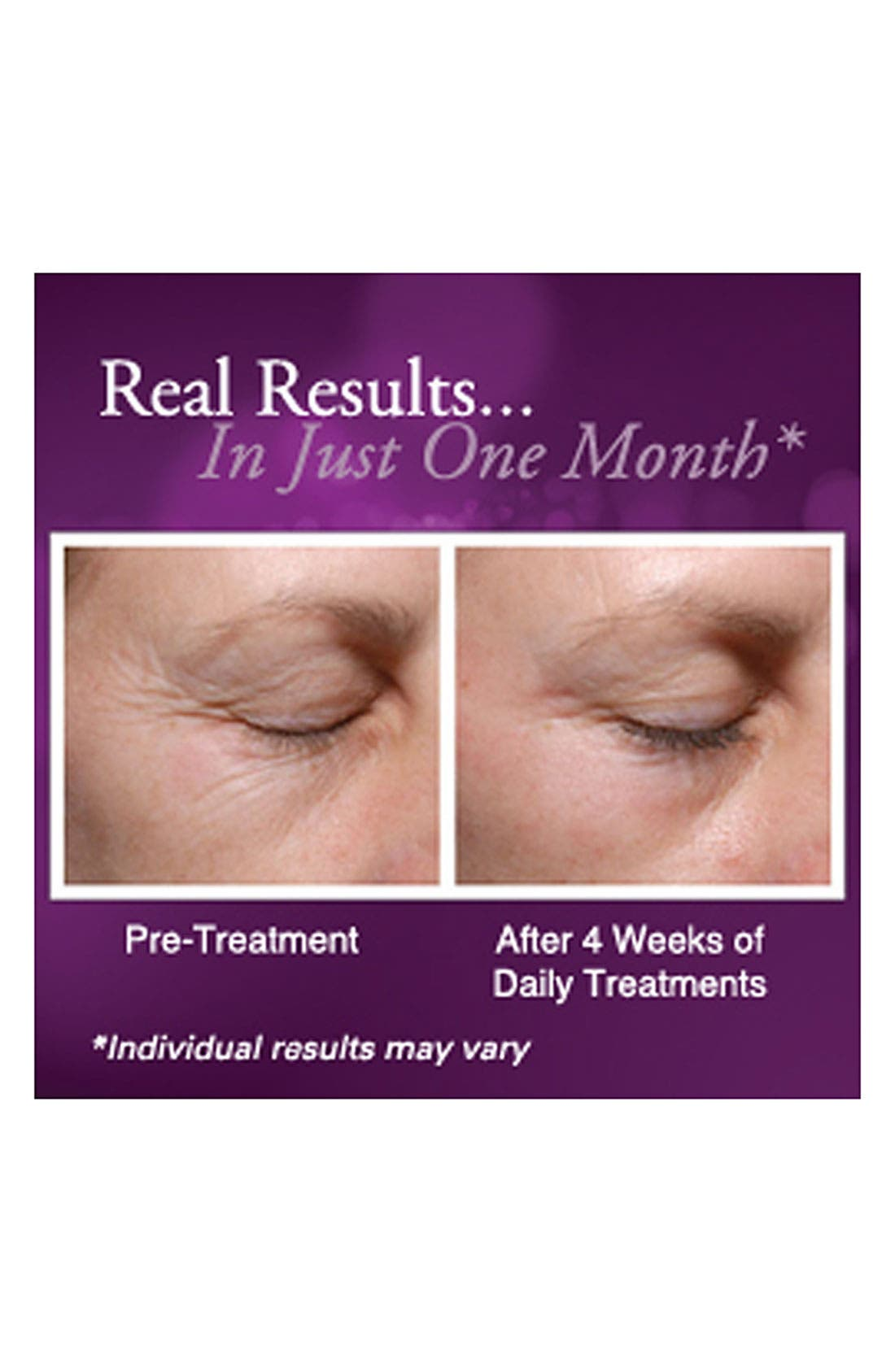 PALOVIA<SUP>®</SUP>,                             Skin Renewing Laser<sup>®</sup>,                             Alternate thumbnail 4, color,                             000