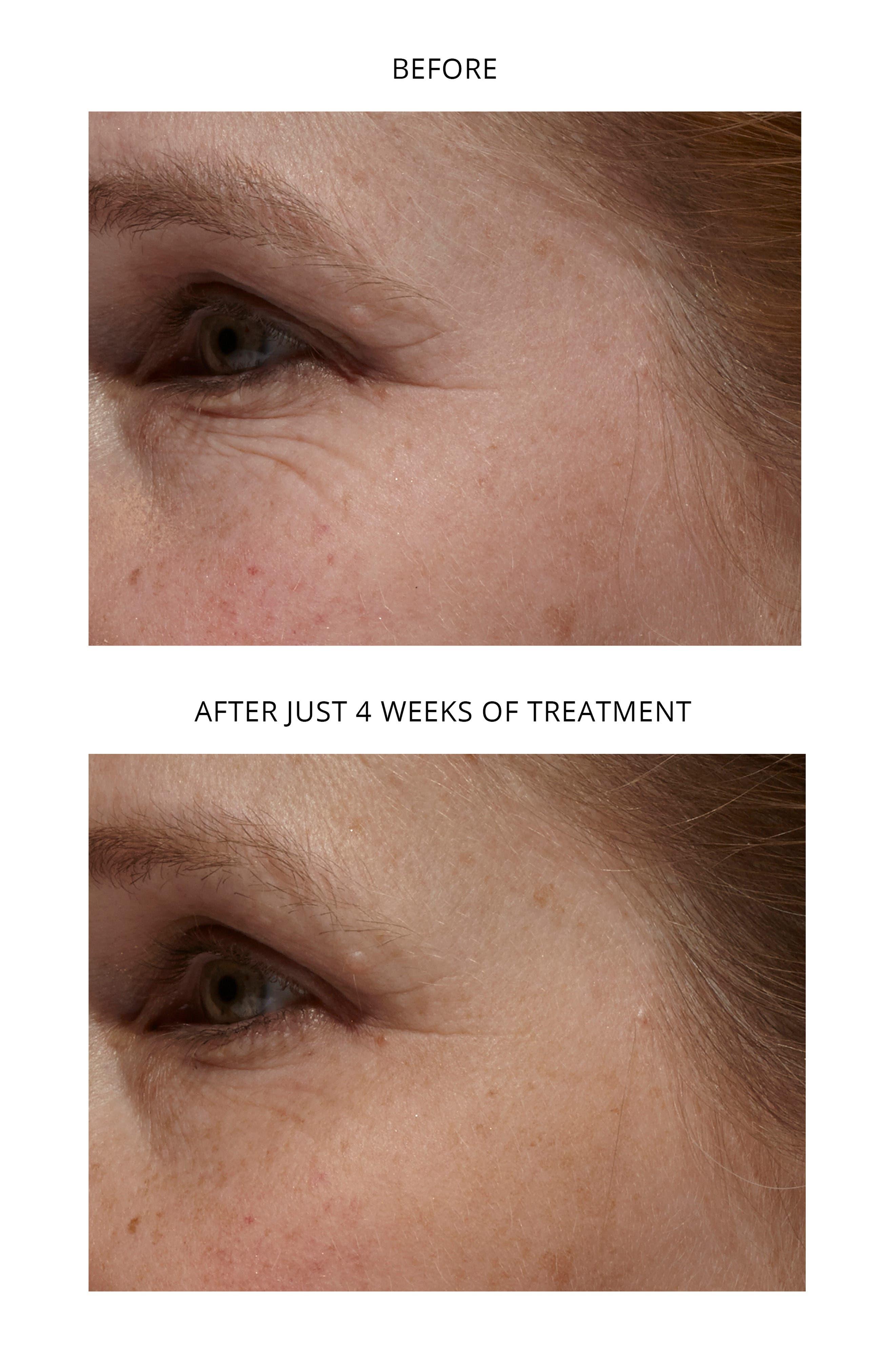 Age-Defying Eye Wrinkle Correcting Laser,                             Alternate thumbnail 3, color,                             LILAC