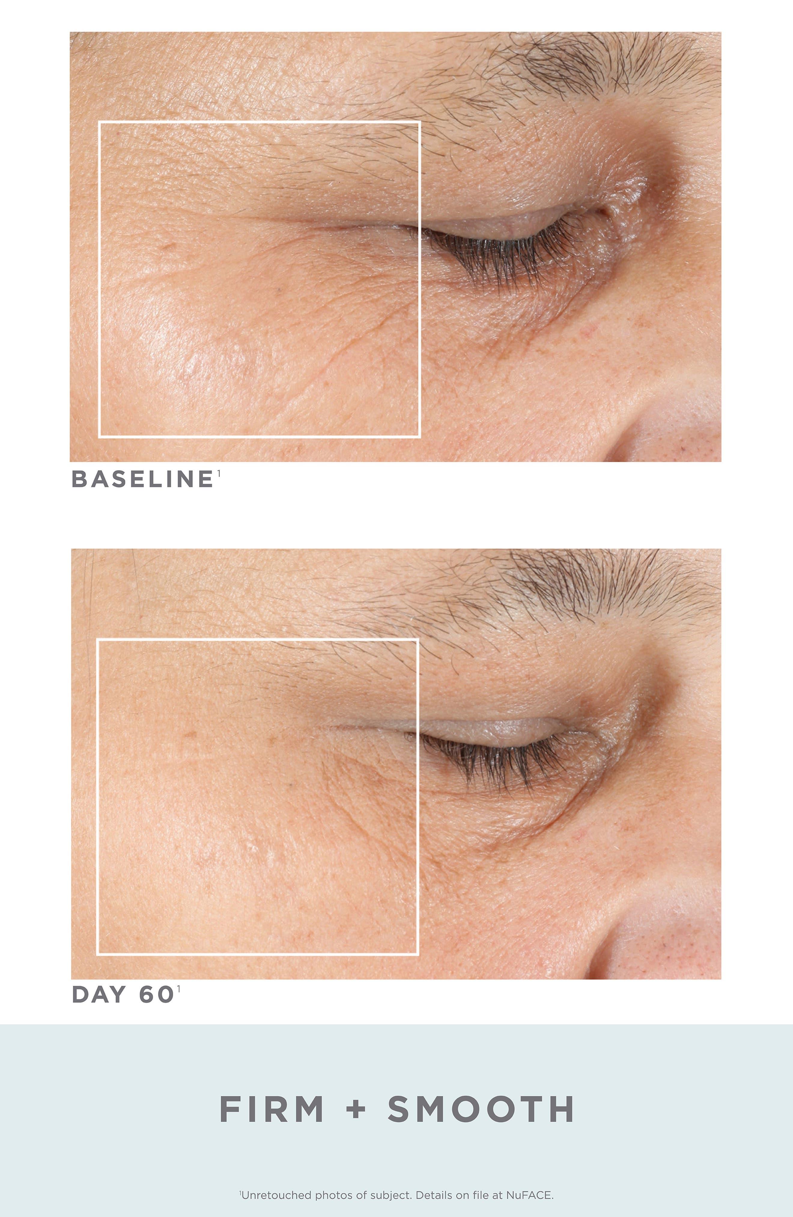 Trinity<sup>®</sup> Facial Trainer Kit + Trinity Eye & Lip Enhancer Attachment,                             Alternate thumbnail 4, color,                             NO COLOR