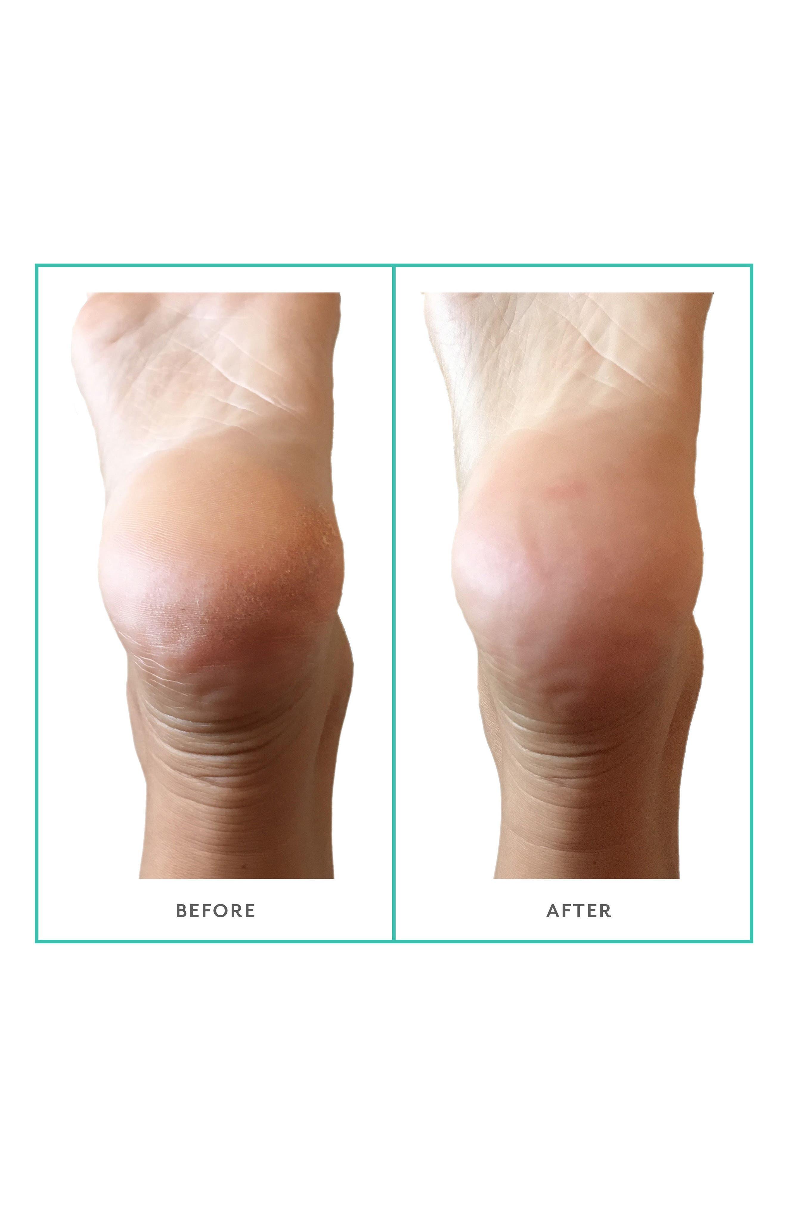 PoshPeel<sup>™</sup> Pedi Cure Foot Treatment,                             Alternate thumbnail 4, color,                             NO COLOR