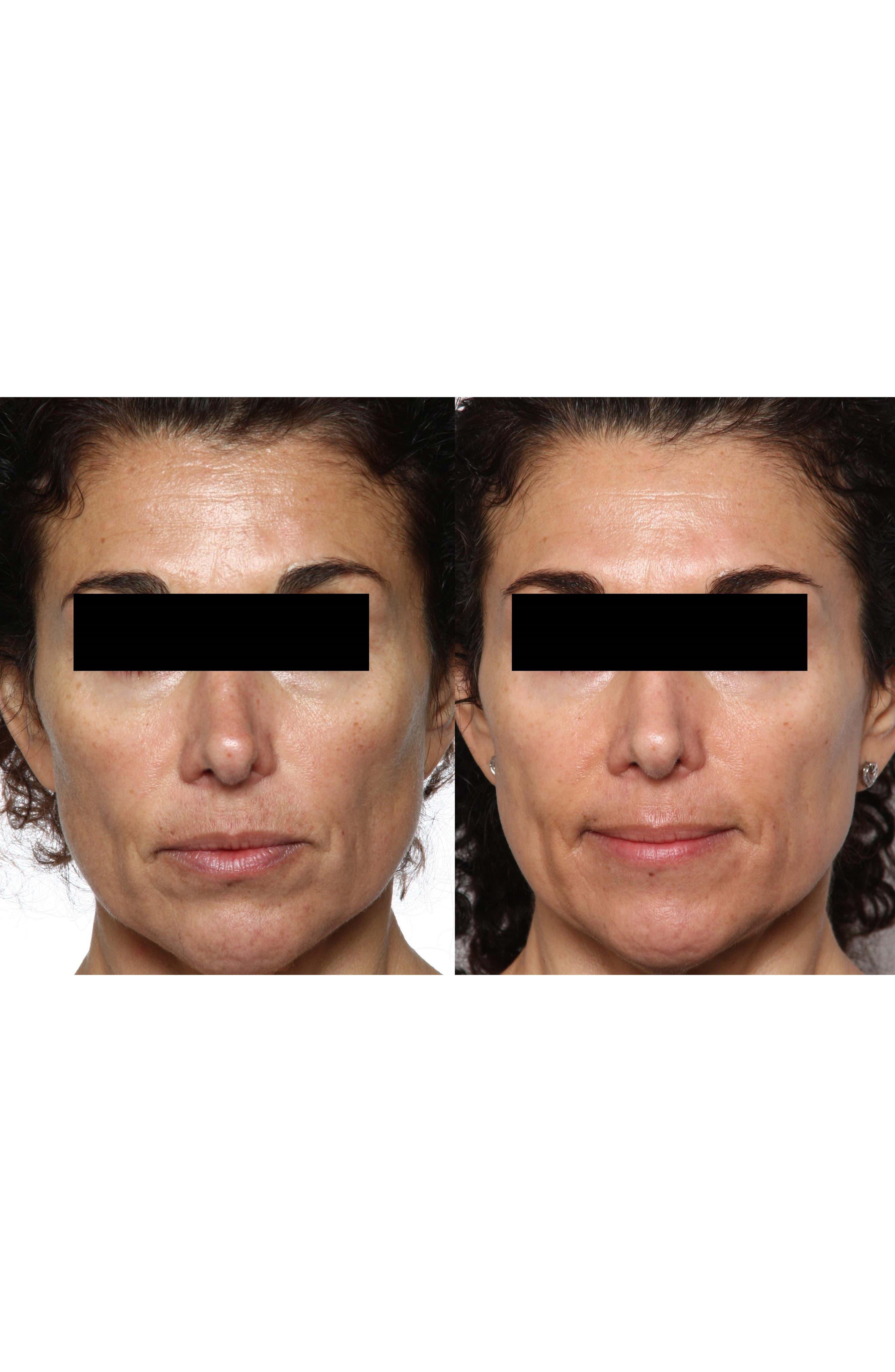 FaceFX<sup>™</sup> Anti-Aging Facial Device,                             Alternate thumbnail 8, color,                             NO COLOR