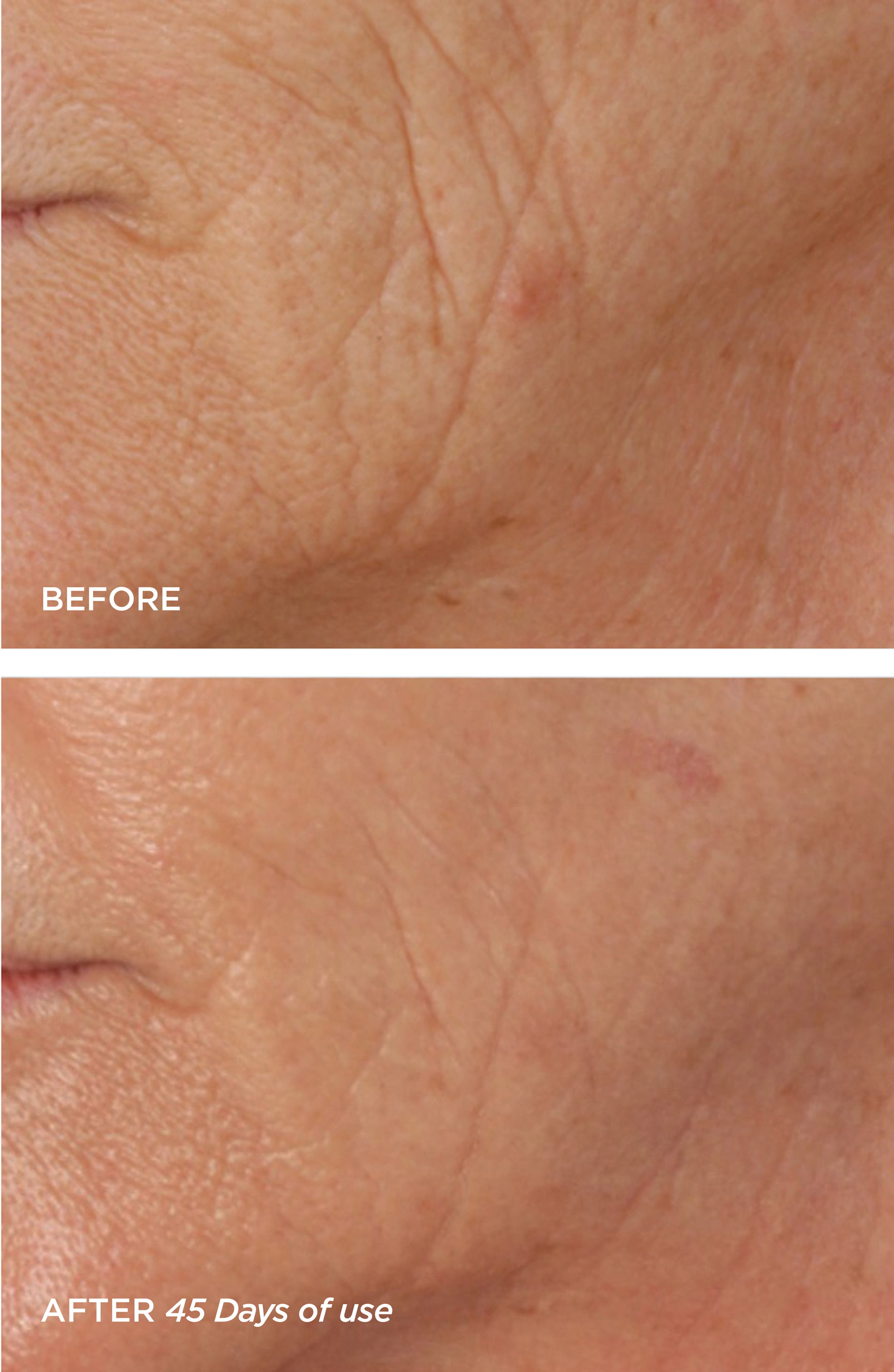 R45 The Reversal 3-Phase Skin Transforming Treatment,                             Alternate thumbnail 3, color,                             NO COLOR