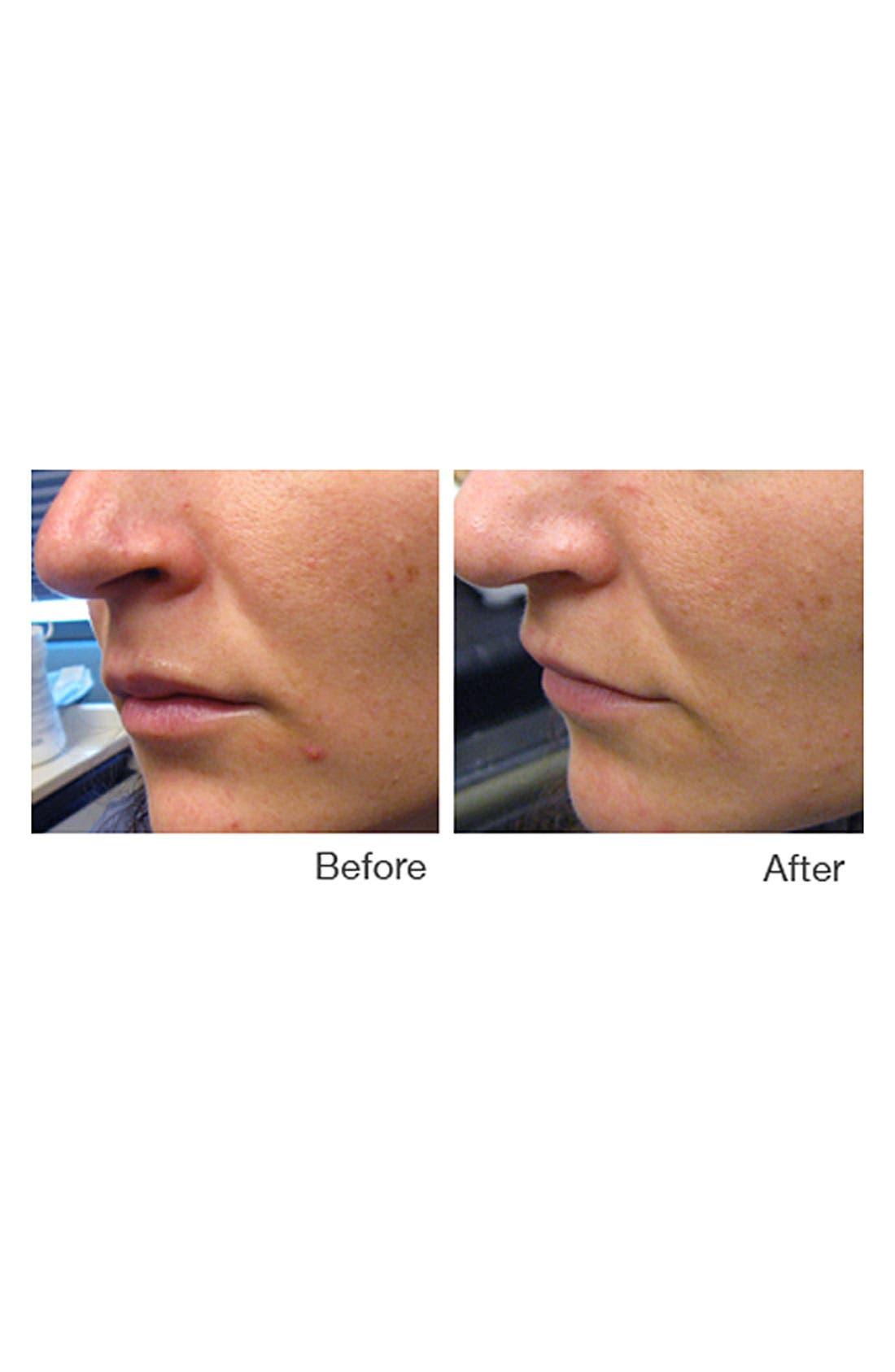 IPL Acne Treatment Device,                             Alternate thumbnail 2, color,                             000