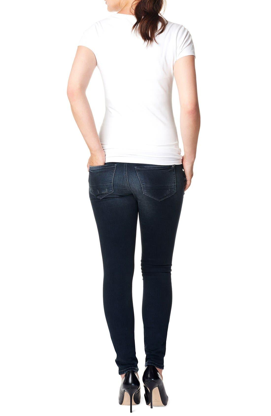 'Britt' Over the Belly Skinny Maternity Jeans,                             Alternate thumbnail 2, color,                             DARK STONE WASH