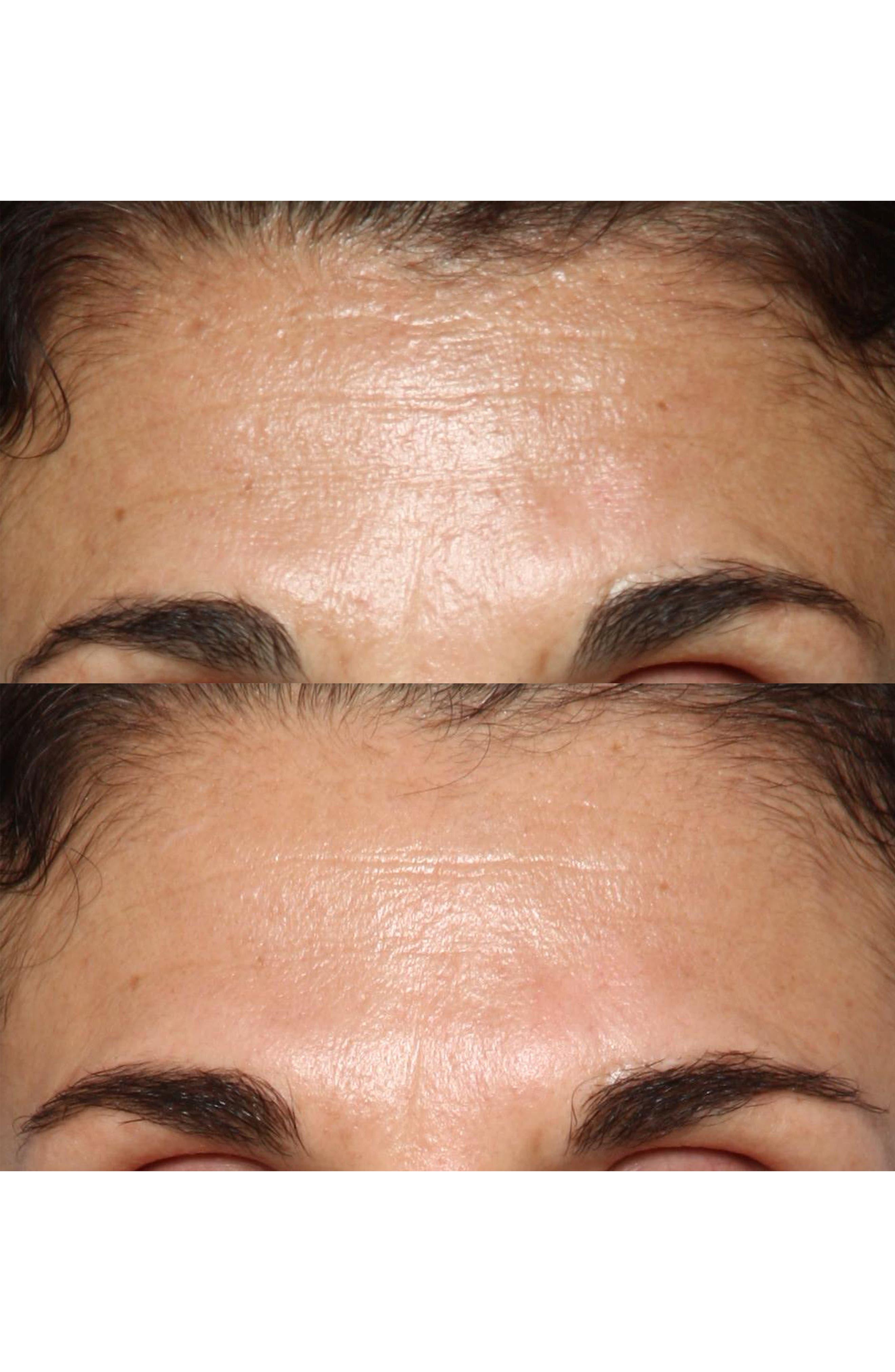 FaceFX<sup>™</sup> Anti-Aging Facial Device,                             Alternate thumbnail 6, color,                             NO COLOR