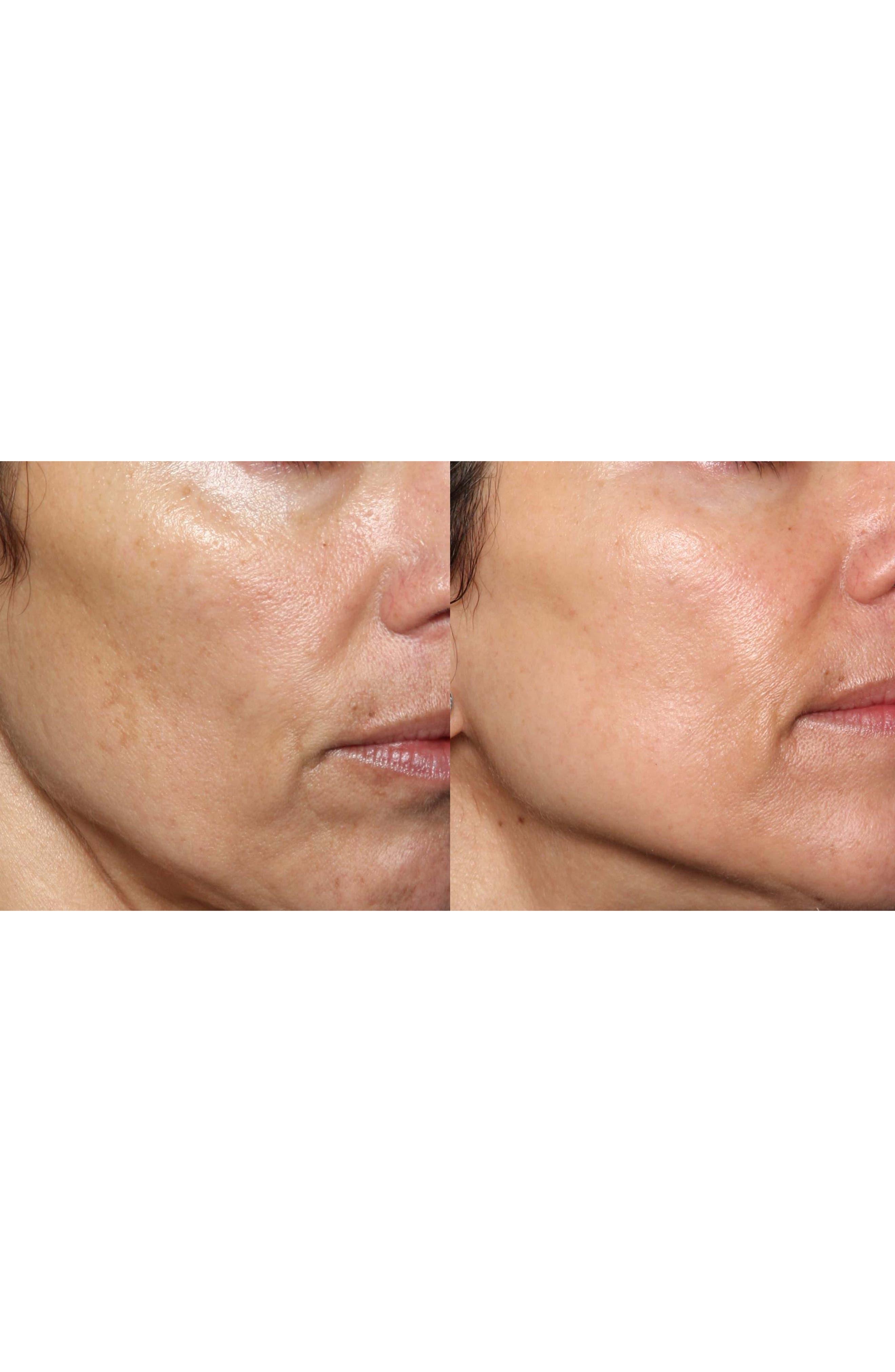 FaceFX<sup>™</sup> Anti-Aging Facial Device,                             Alternate thumbnail 5, color,                             NO COLOR