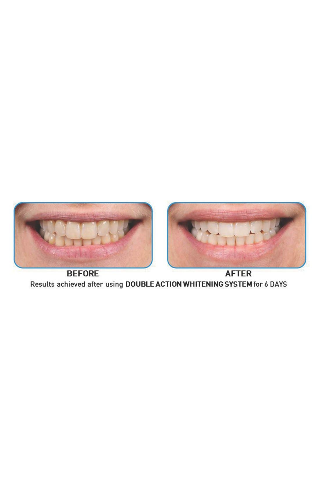 Double Action Whitening System,                             Alternate thumbnail 3, color,