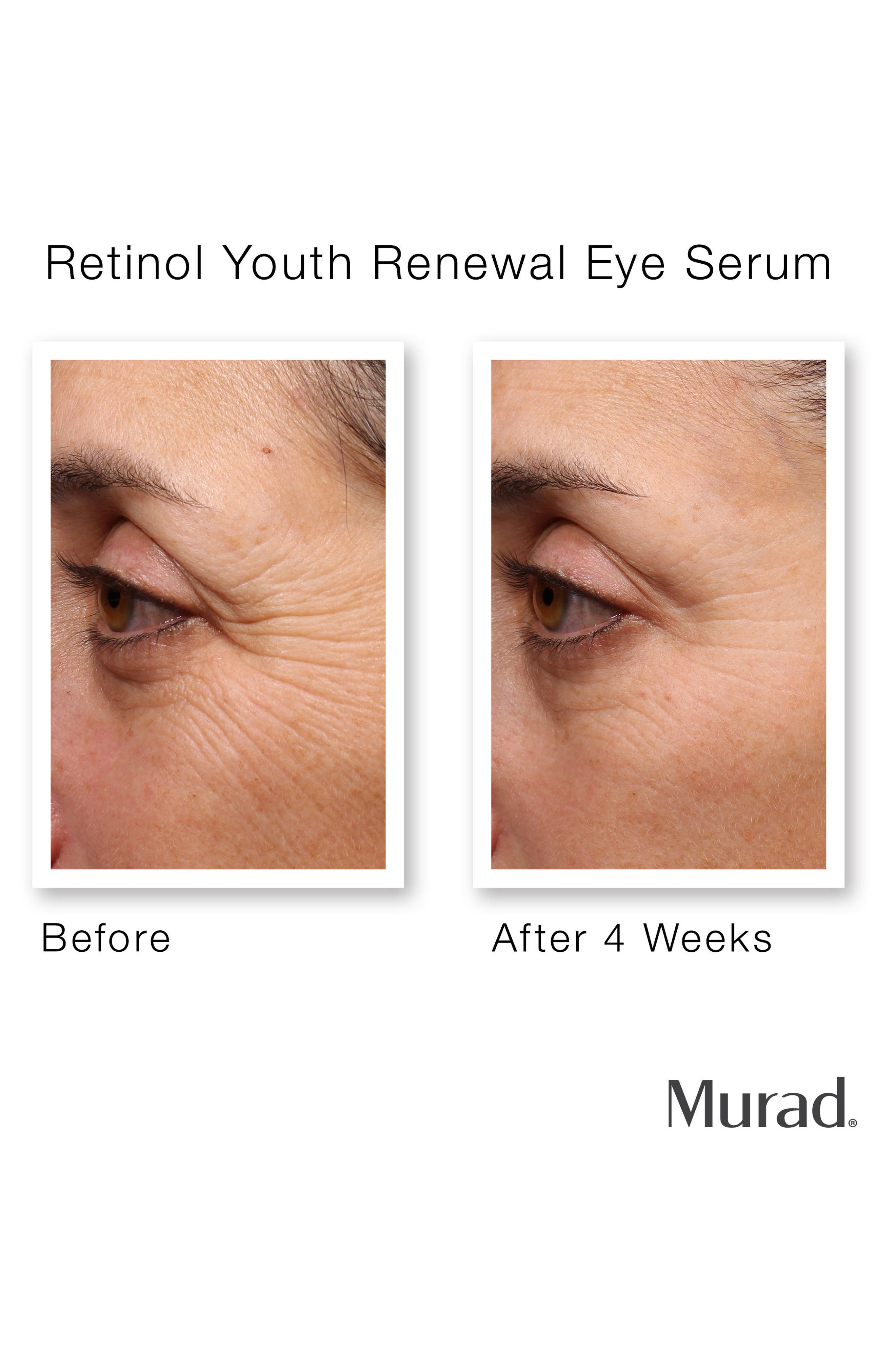Retinol Youth Renewal Eye Serum,                             Alternate thumbnail 3, color,                             NO COLOR