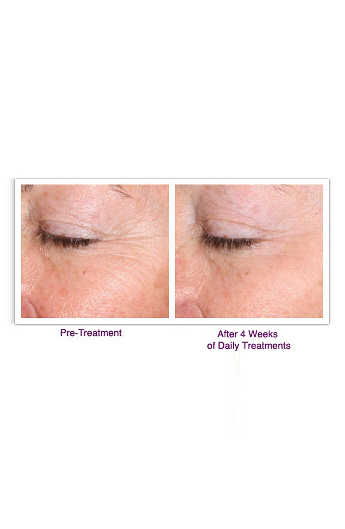 PALOVIA<SUP>®</SUP>,                             Skin Renewing Laser<sup>®</sup>,                             Alternate thumbnail 3, color,                             000