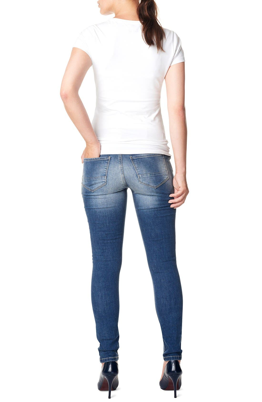 NOPPIES,                             'Tara' Over the Belly Skinny Maternity Jeans,                             Alternate thumbnail 2, color,                             STONE WASH