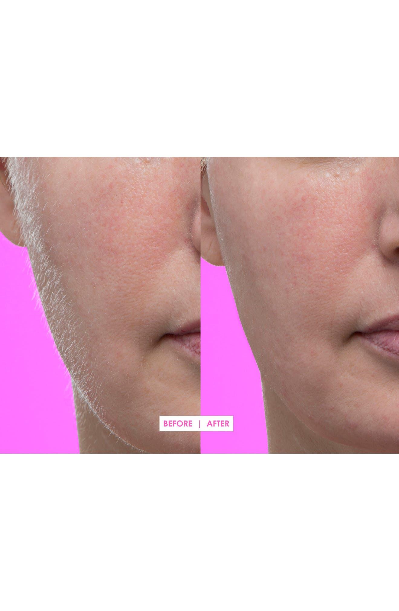 Hot Pink Facial Exfoliating Device,                             Alternate thumbnail 7, color,                             000