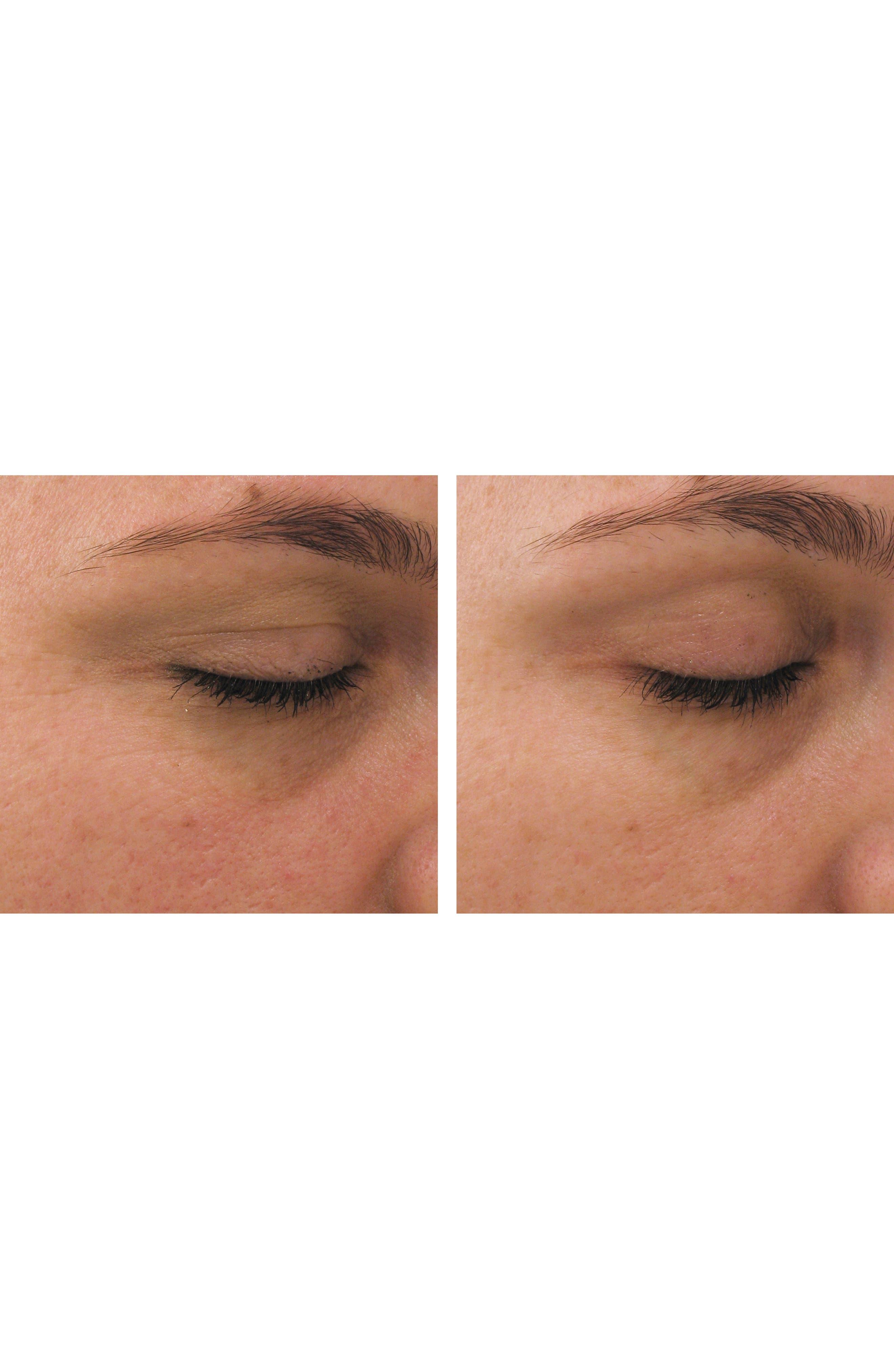 PCA SKIN,                             Ideal Complex Restorative Eye Cream,                             Alternate thumbnail 2, color,                             NO COLOR