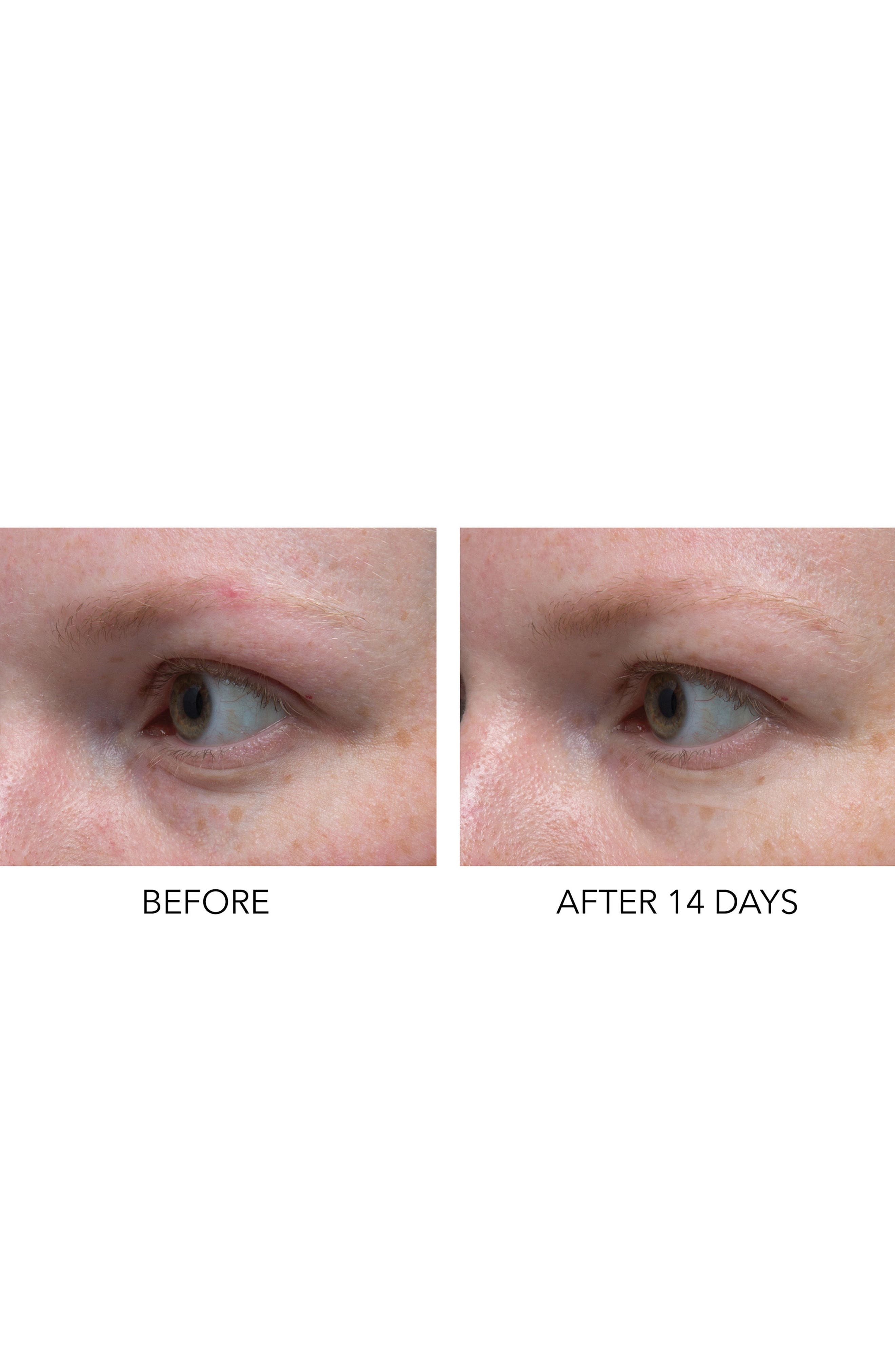 Dr. Dennis Gross Hyaluronic Marine Dew It Right Eye Gel,                             Alternate thumbnail 3, color,                             NO COLOR