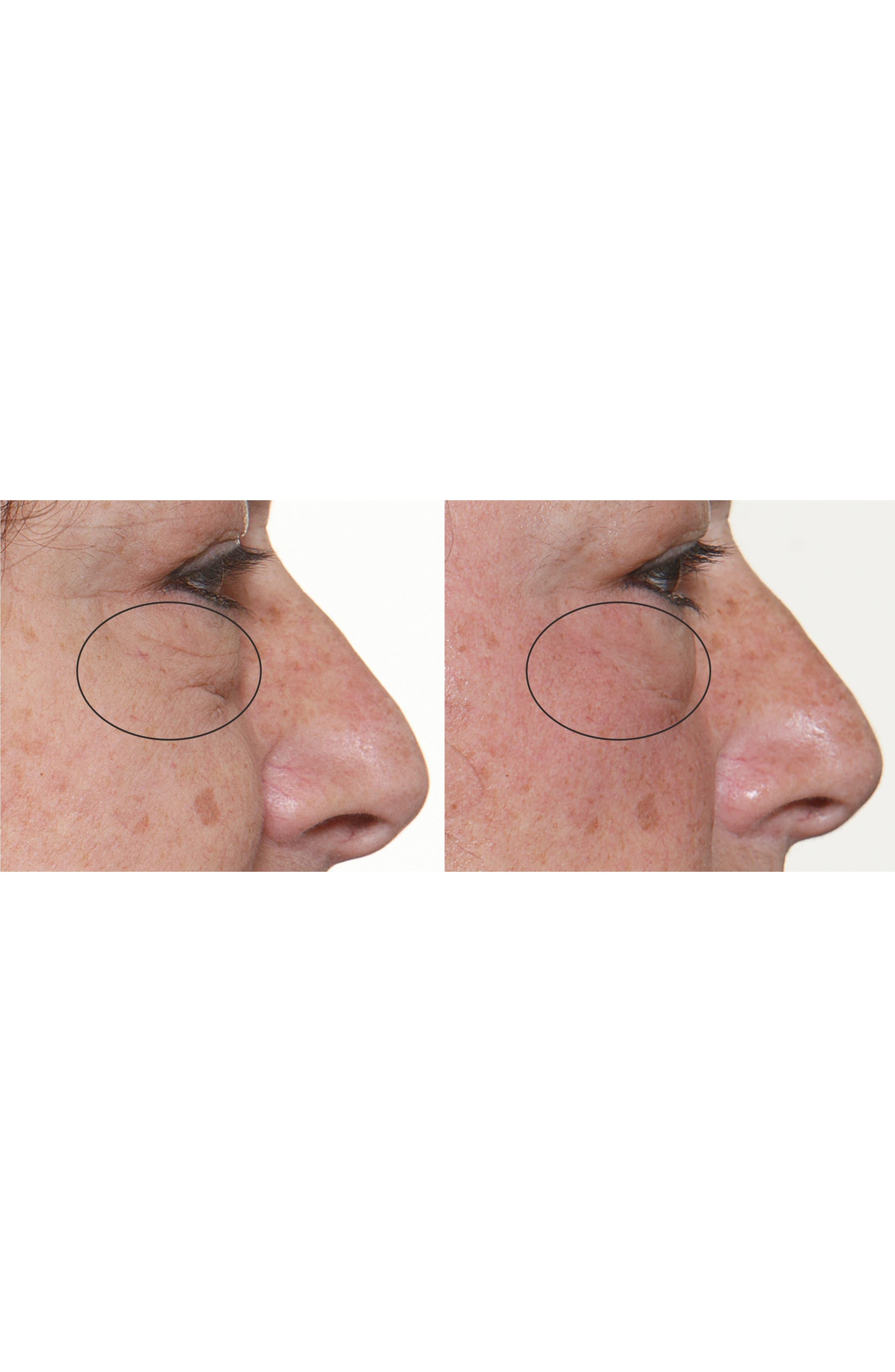 FaceFX<sup>™</sup> Anti-Aging Facial Device,                             Alternate thumbnail 7, color,                             NO COLOR