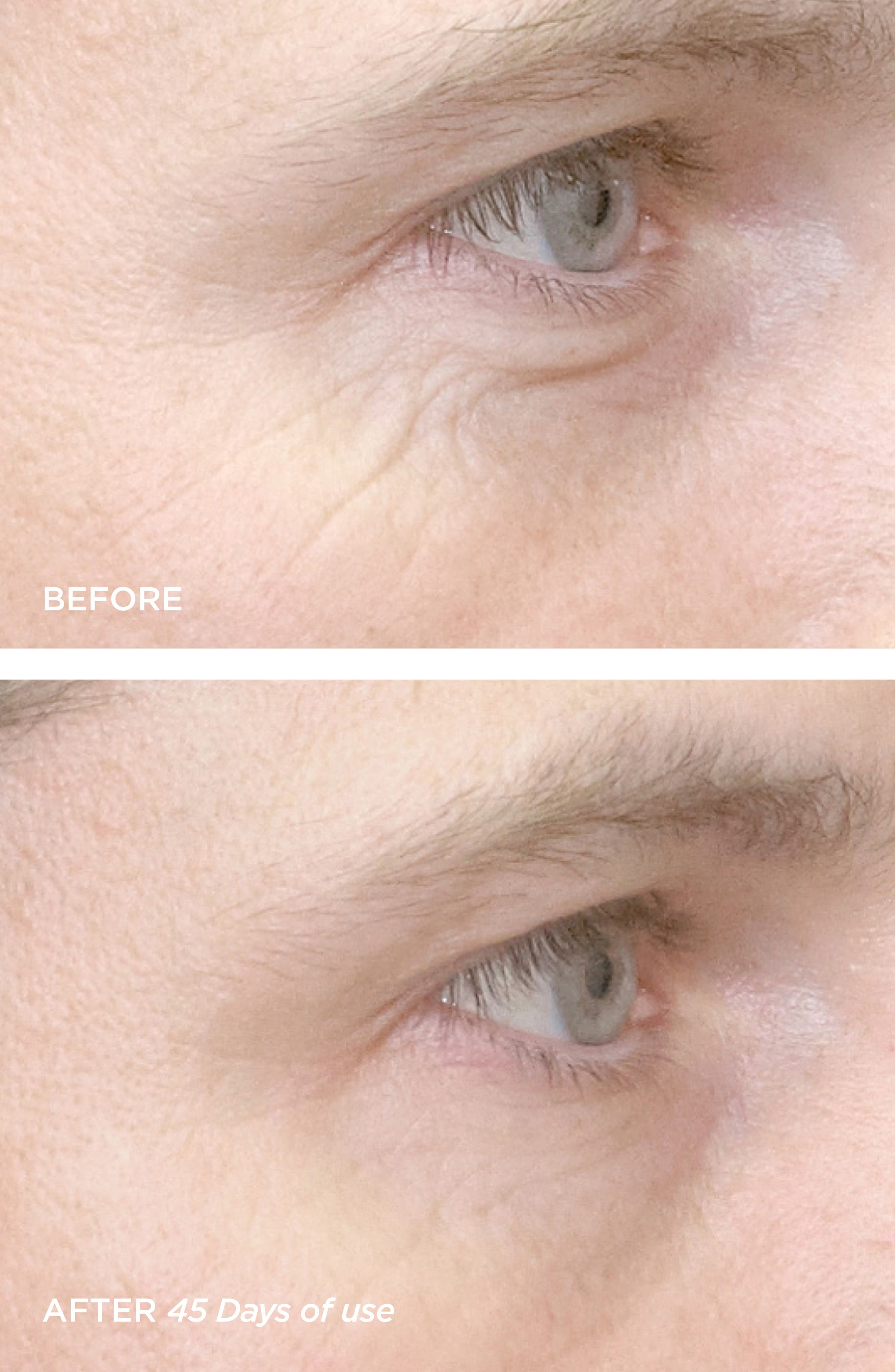 R45 The Reversal 3-Phase Skin Transforming Treatment,                             Alternate thumbnail 2, color,                             NO COLOR