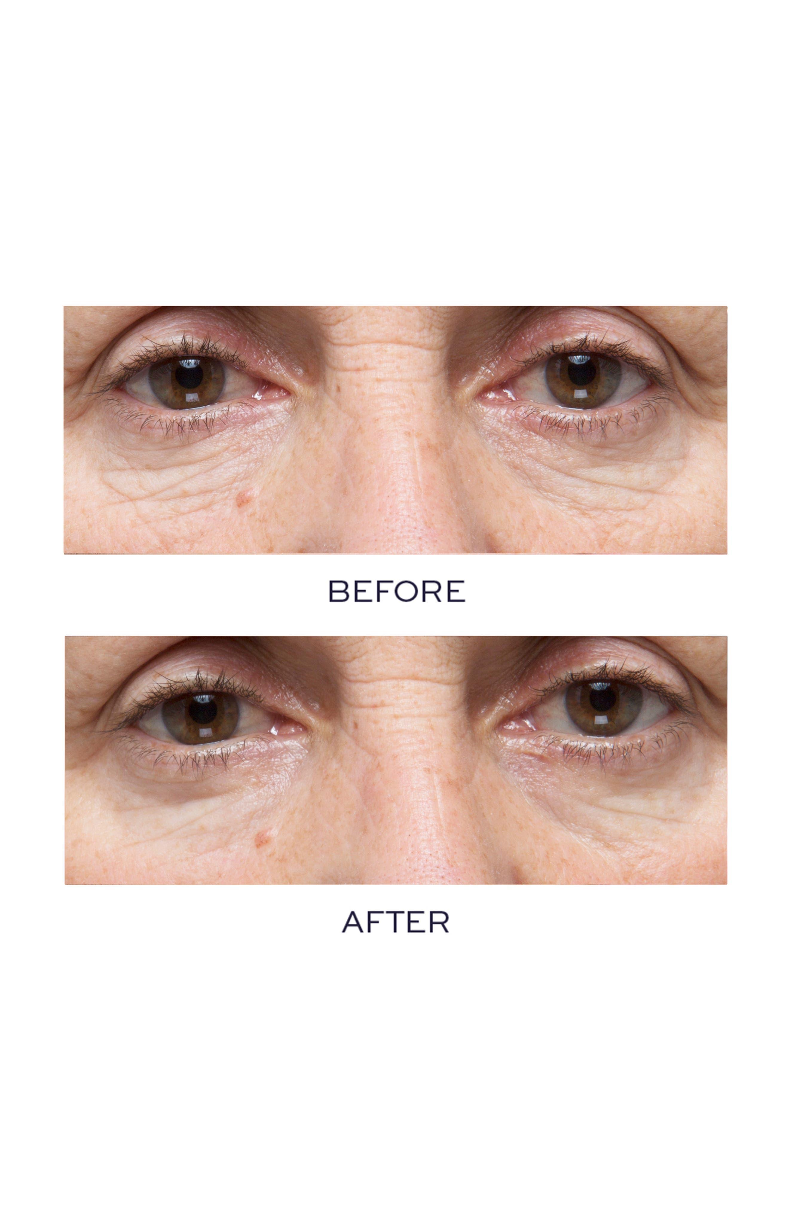 ELEMIS, Pro-Collagen Hydra-Gel Eye Mask, Alternate thumbnail 2, color, NO COLOR