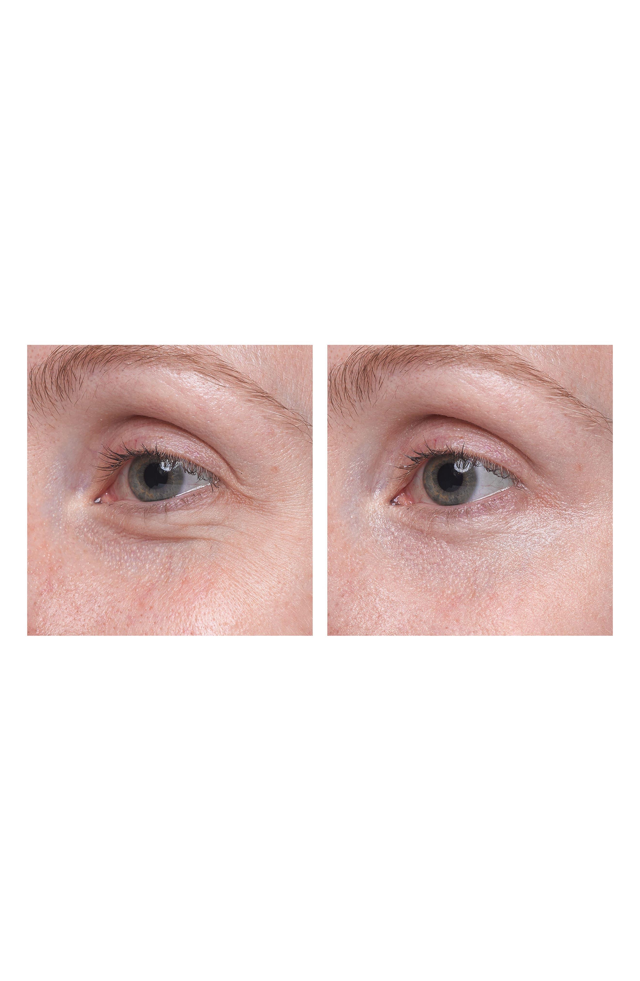 LANCÔME, Visionnaire Yeux Eye on Correction<sup>®</sup> Advanced Multi-Correcting Eye Balm, Alternate thumbnail 4, color, NO COLOR