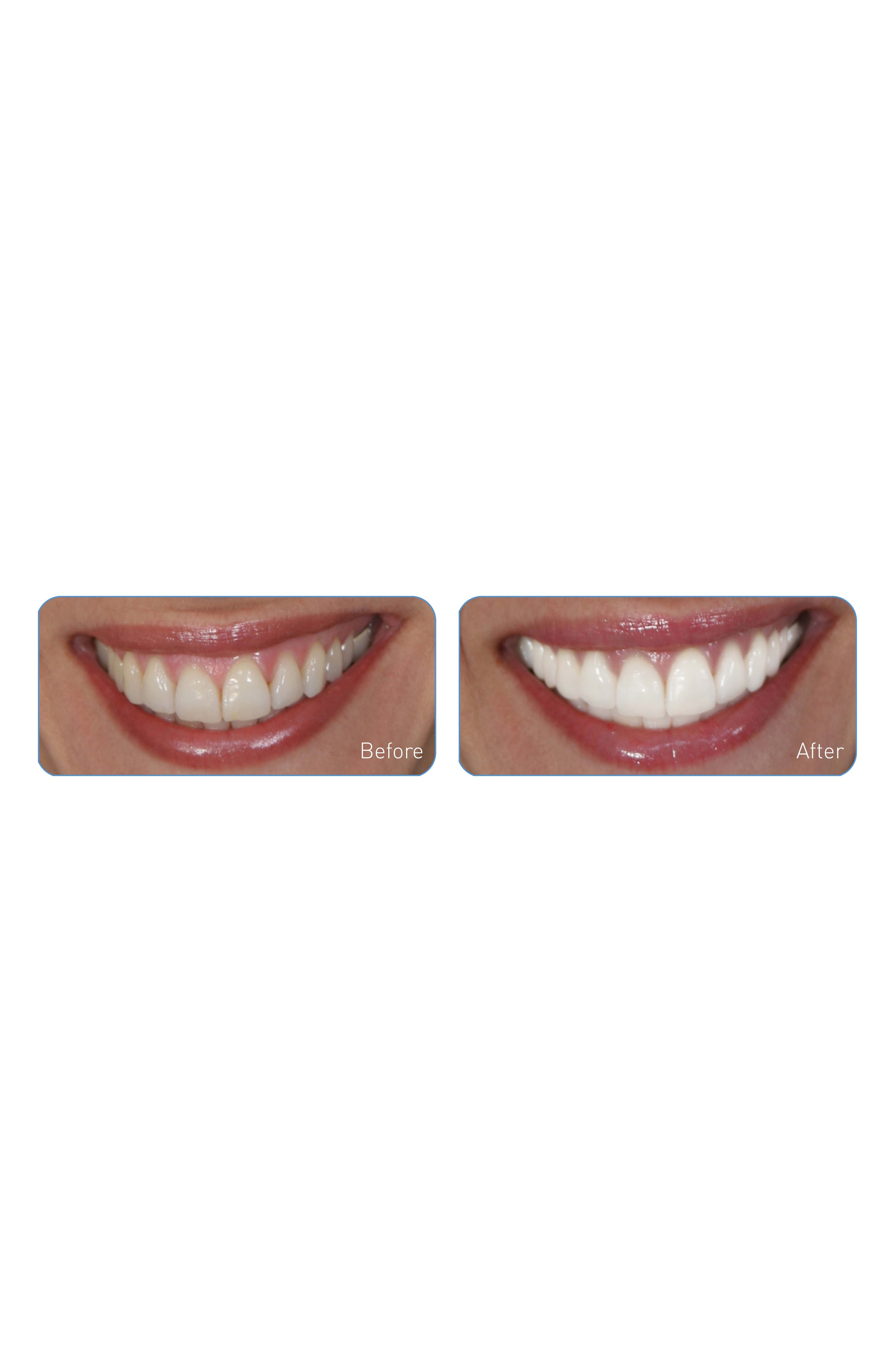 GO SMILE<SUP>®</SUP>, 'Dental Pro On-the-Go - Sonic Blue' Teeth Whitening System, Alternate thumbnail 4, color, WHITE