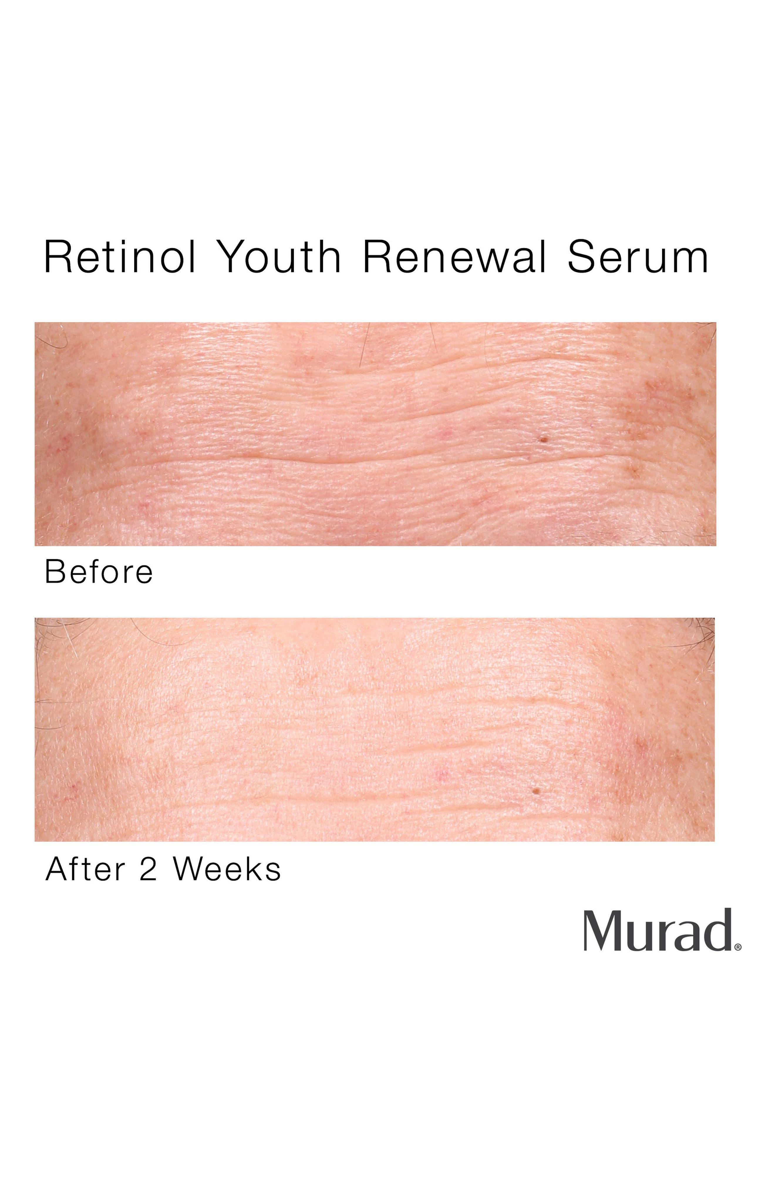 MURAD<SUP>®</SUP>, Retinol Youth Renewal Serum, Alternate thumbnail 4, color, NO COLOR