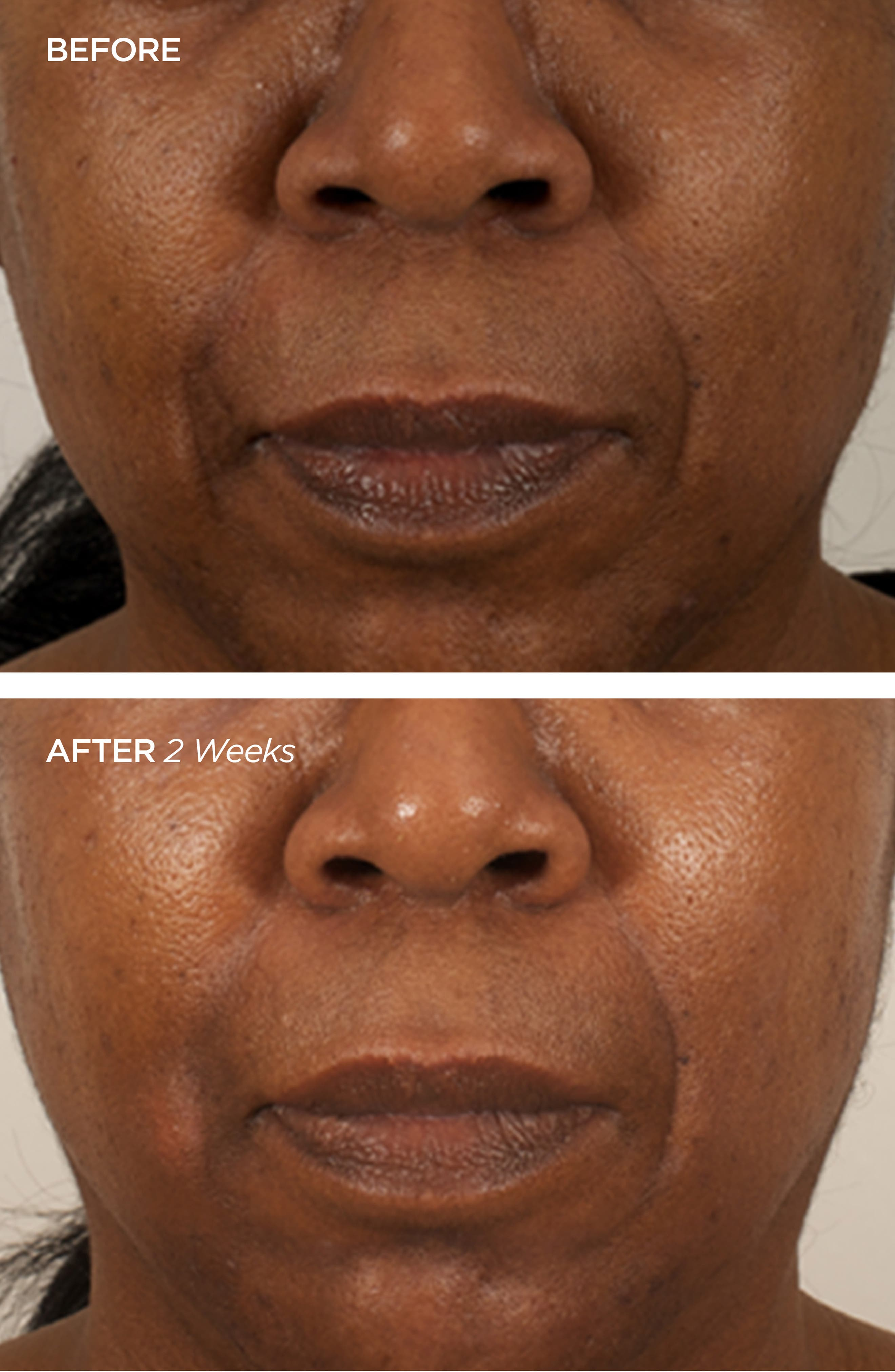 BEAUTYBIO, The Brightener Two-Part Cell Renewal Treatment, Alternate thumbnail 2, color, NO COLOR