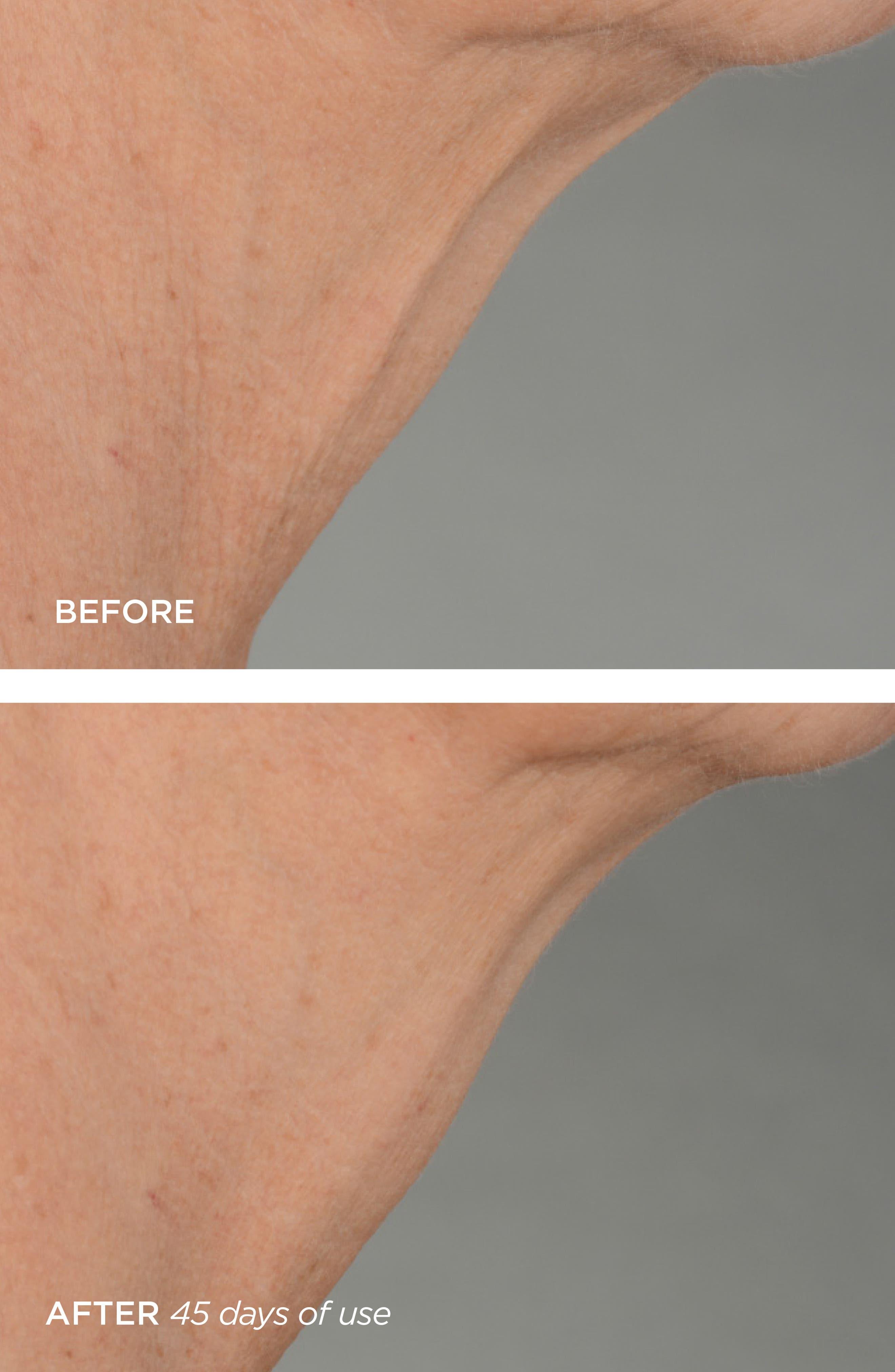 BEAUTYBIO, R45 The Lift 3-Phase Advanced Neck Contouring Treatment, Alternate thumbnail 4, color, NO COLOR