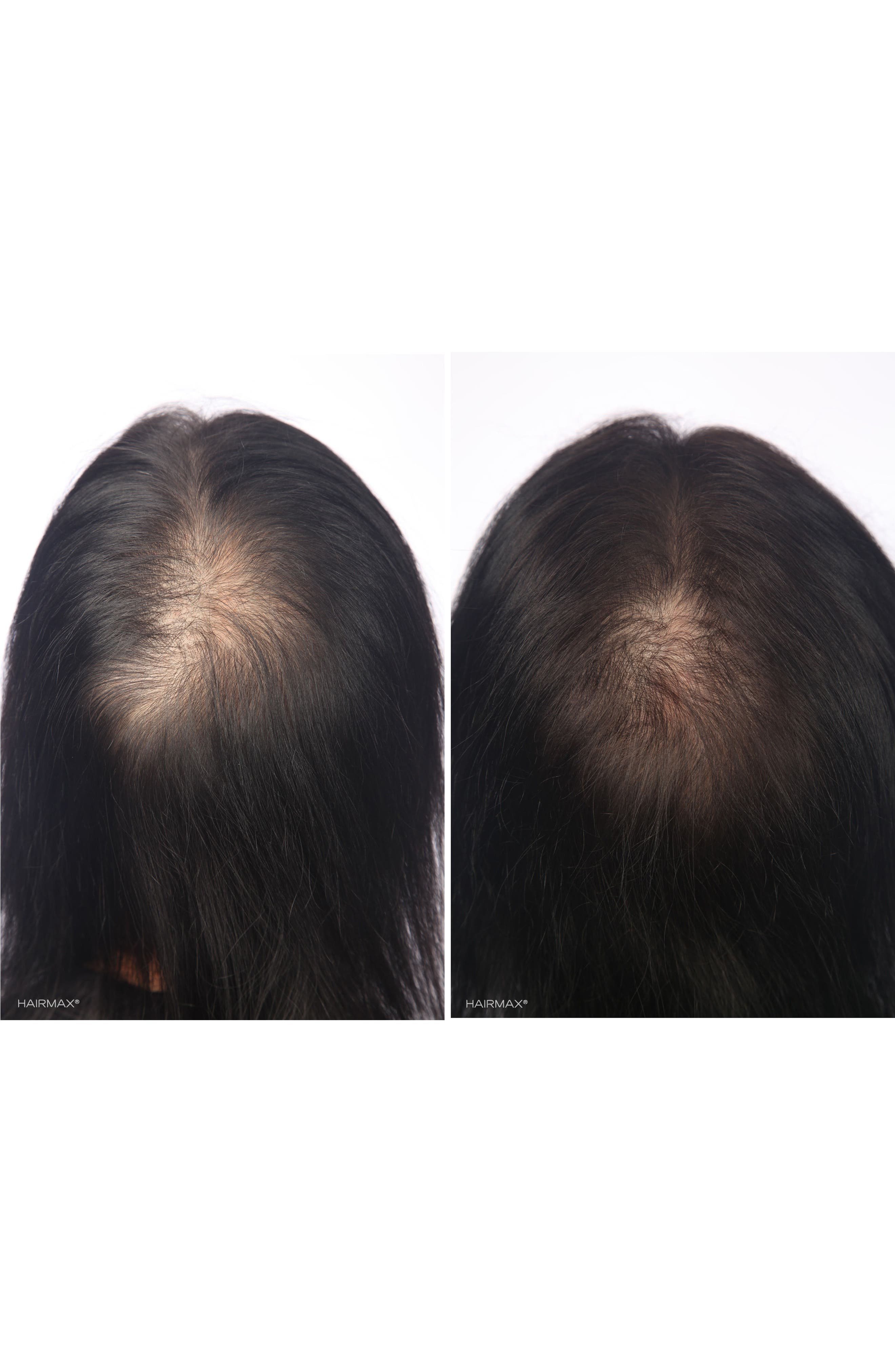 HAIRMAX<SUP>®</SUP>, 'LaserBand 82' Laser Hair Regrowth System, Alternate thumbnail 7, color, NO COLOR