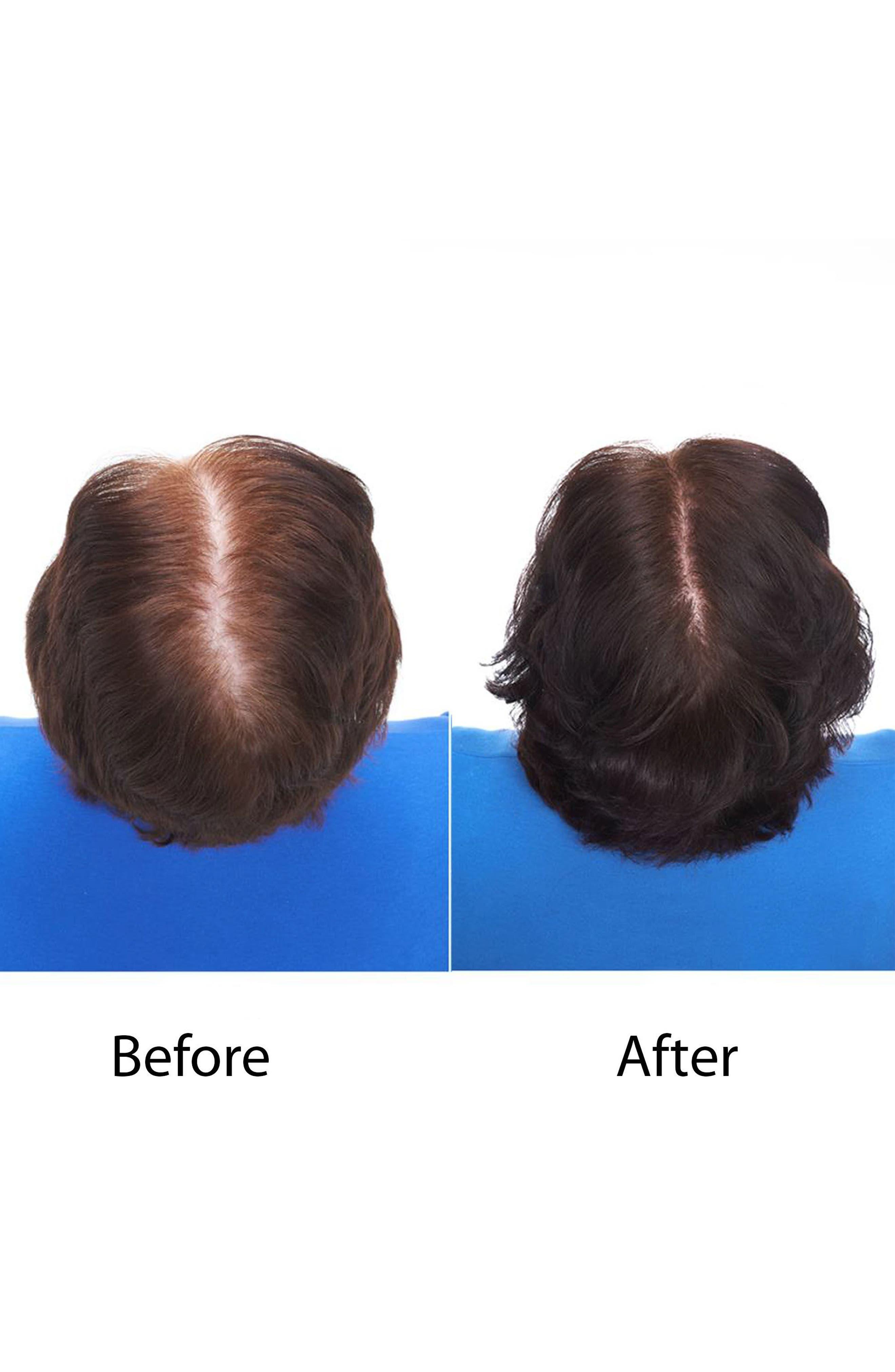 KERANIQUE, Hair Regrowth Treatment Spray for Women, Alternate thumbnail 4, color, NO COLOR