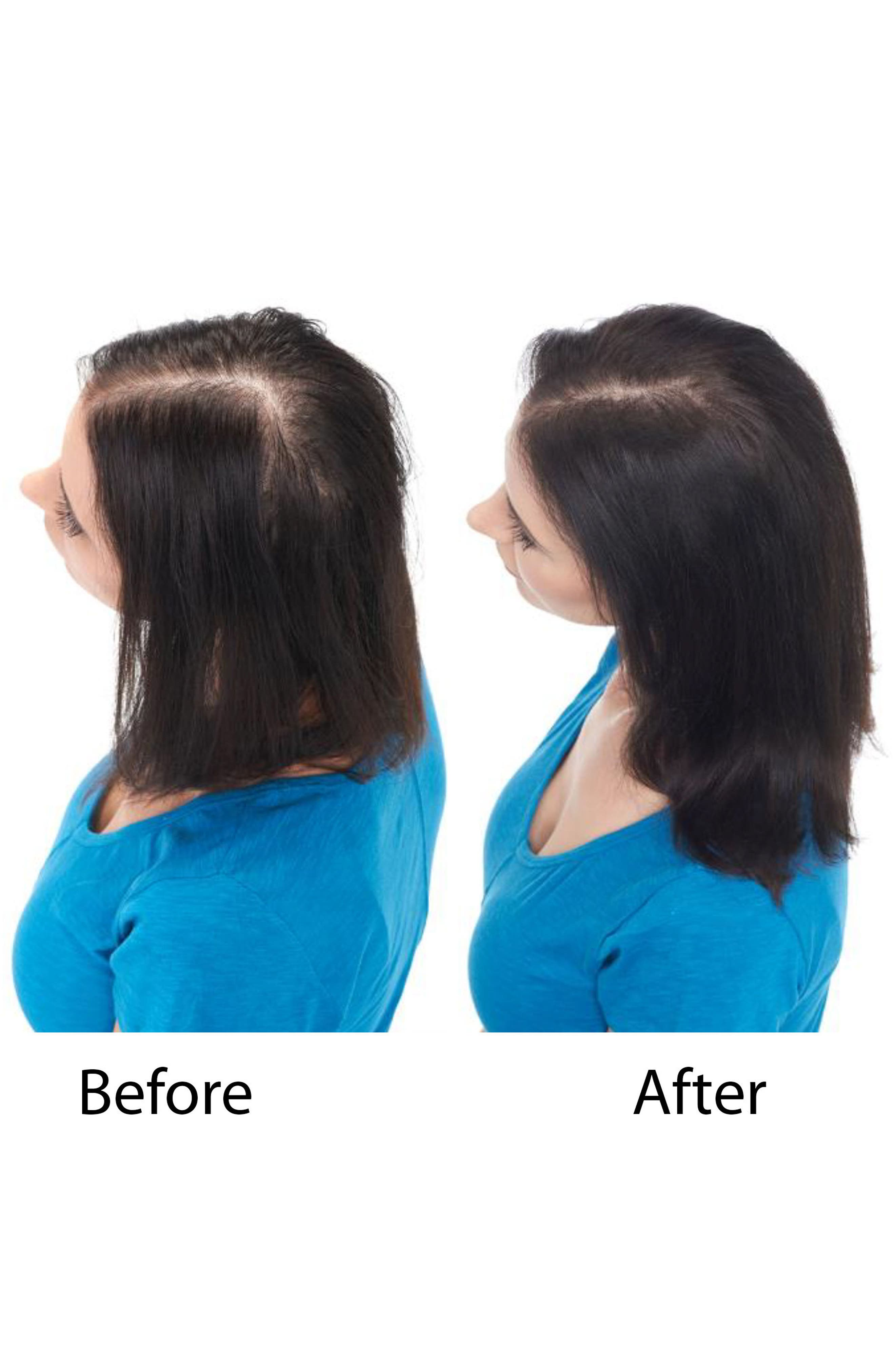 KERANIQUE, Hair Regrowth Treatment Spray for Women, Alternate thumbnail 3, color, NO COLOR