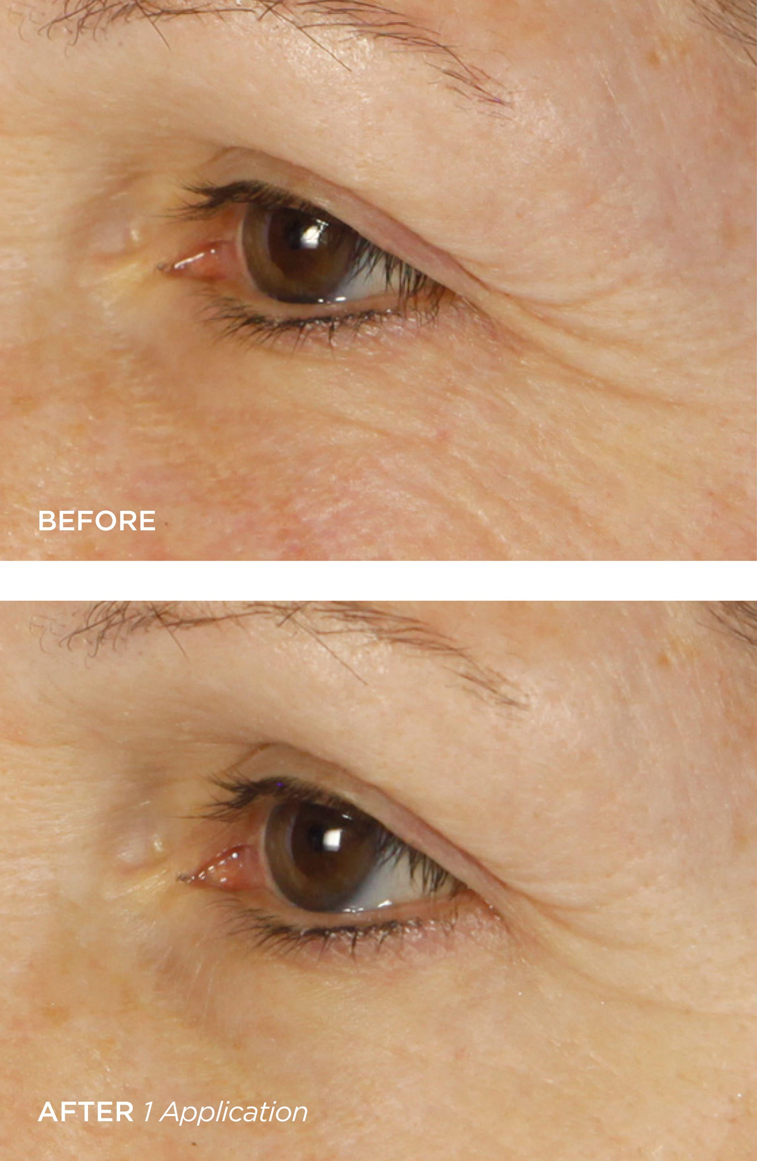 BEAUTYBIO, Bright Eyes Illuminating Colloidal Silver + Collagen Eye Patch, Alternate thumbnail 4, color, NO COLOR