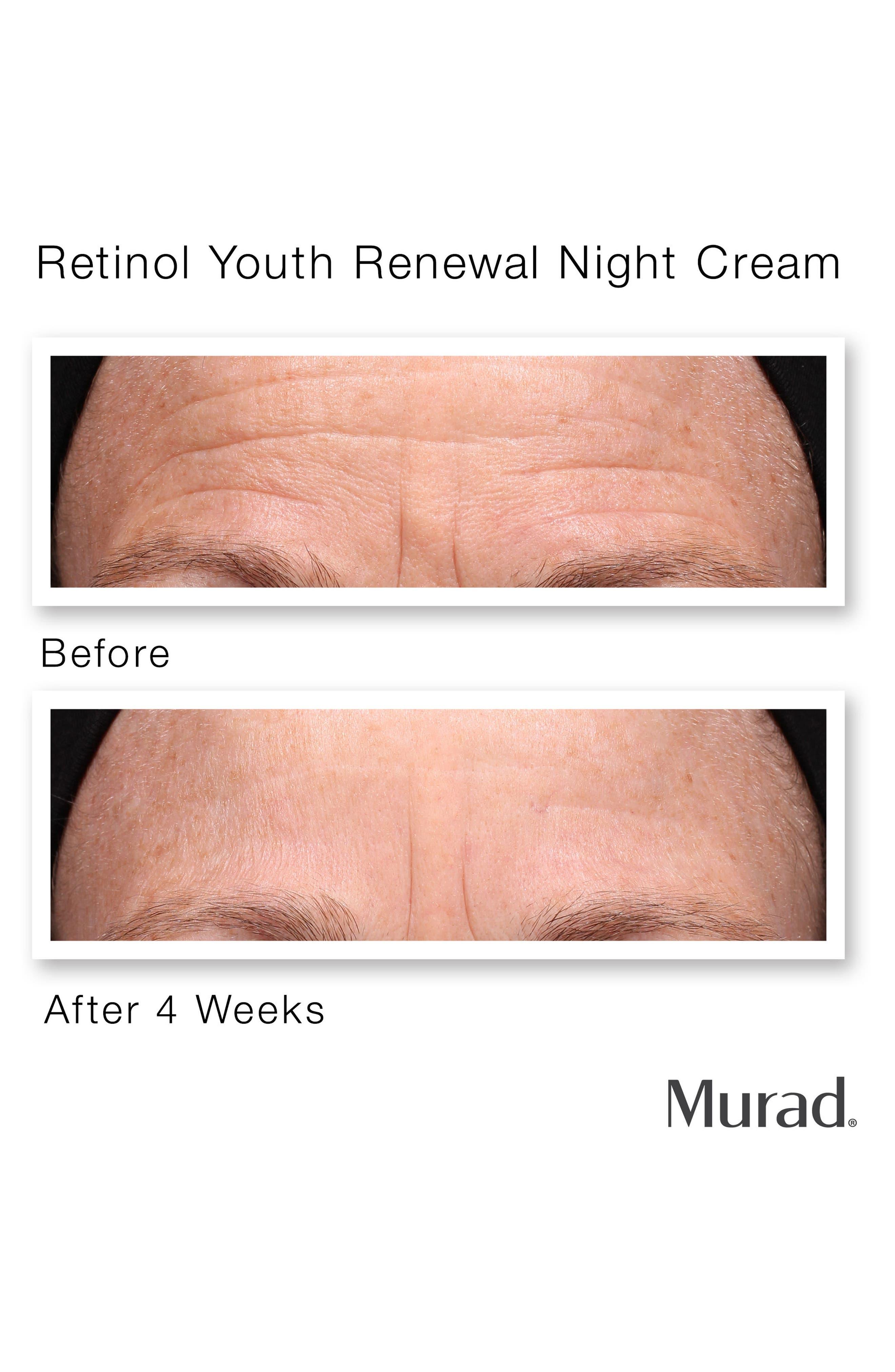 MURAD<SUP>®</SUP>, Retinol Youth Renewal Night Cream, Alternate thumbnail 3, color, NO COLOR