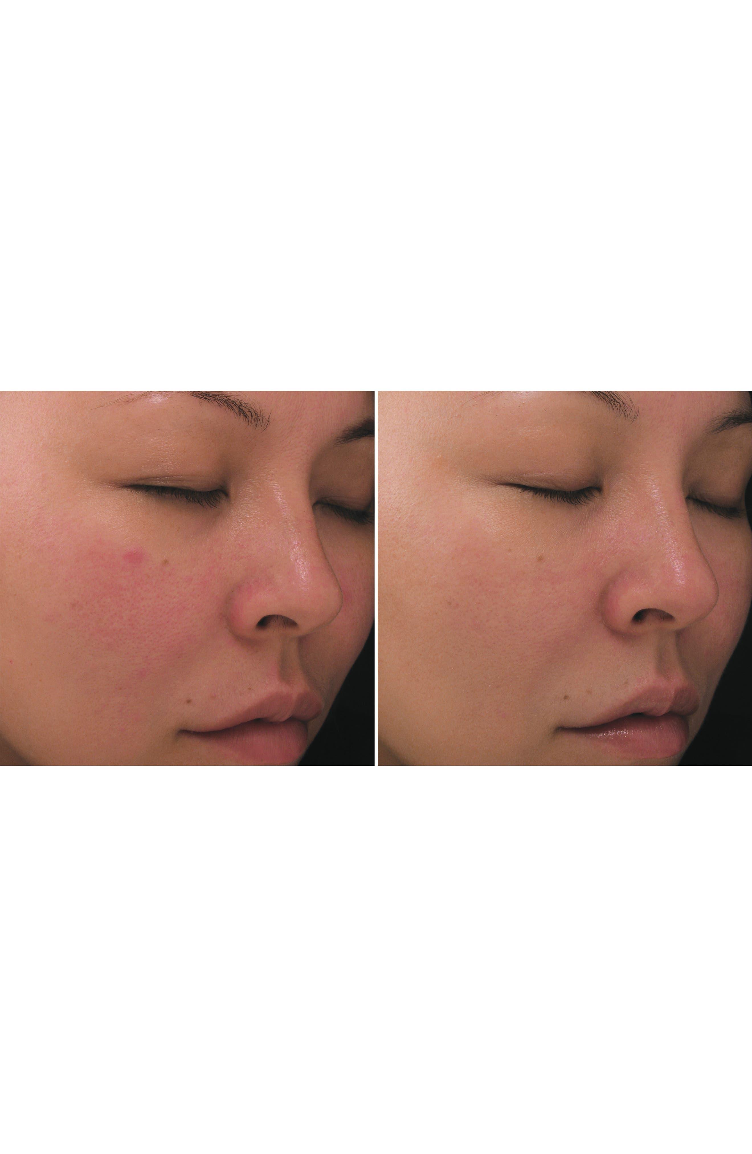 PCA SKIN, Retinol Treatment for Sensitive Skin, Alternate thumbnail 2, color, NO COLOR