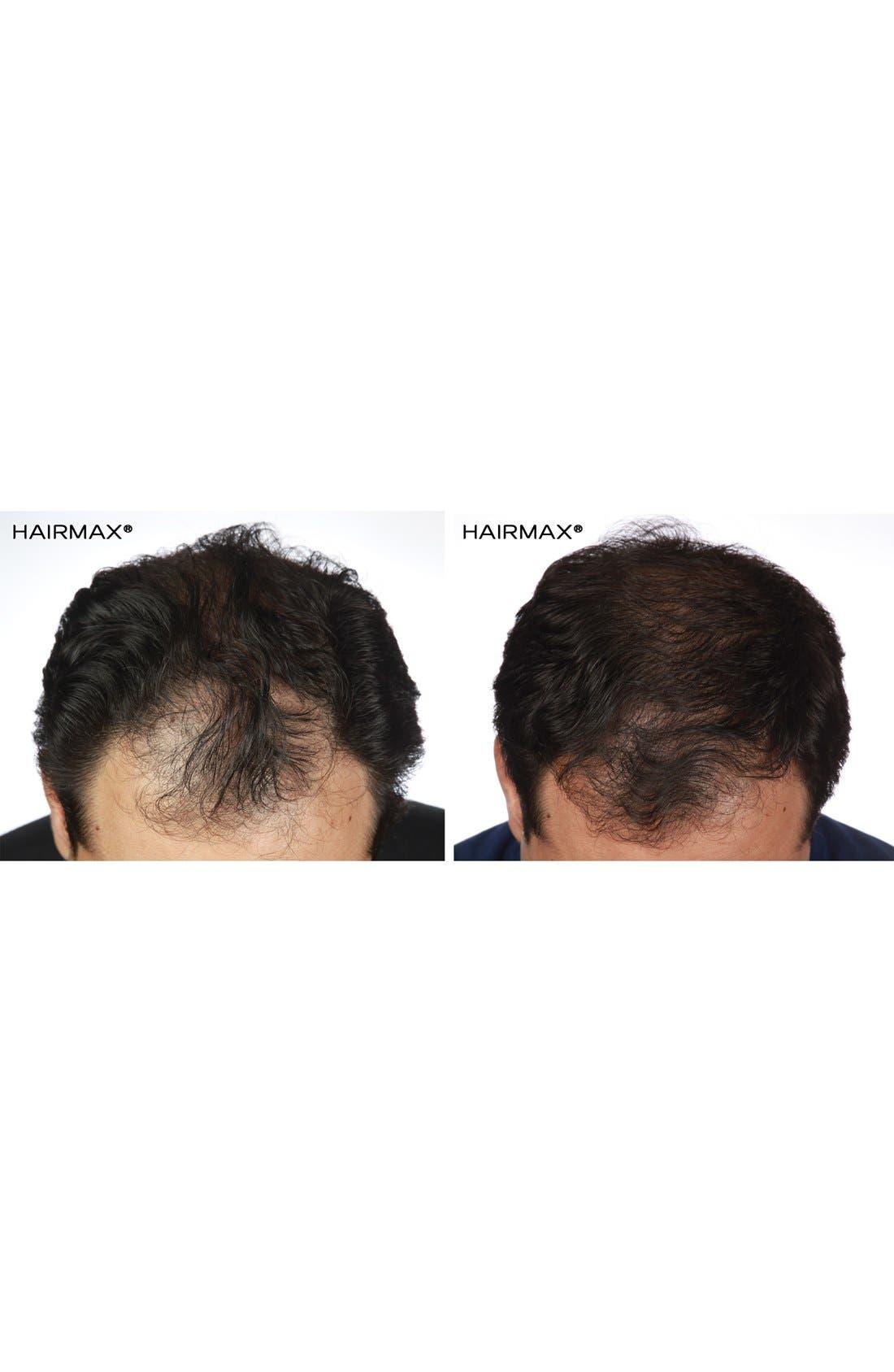 HAIRMAX<SUP>®</SUP>, 'Ultima 12 LaserComb' Laser Hair Regrowth Device, Alternate thumbnail 5, color, NO COLOR