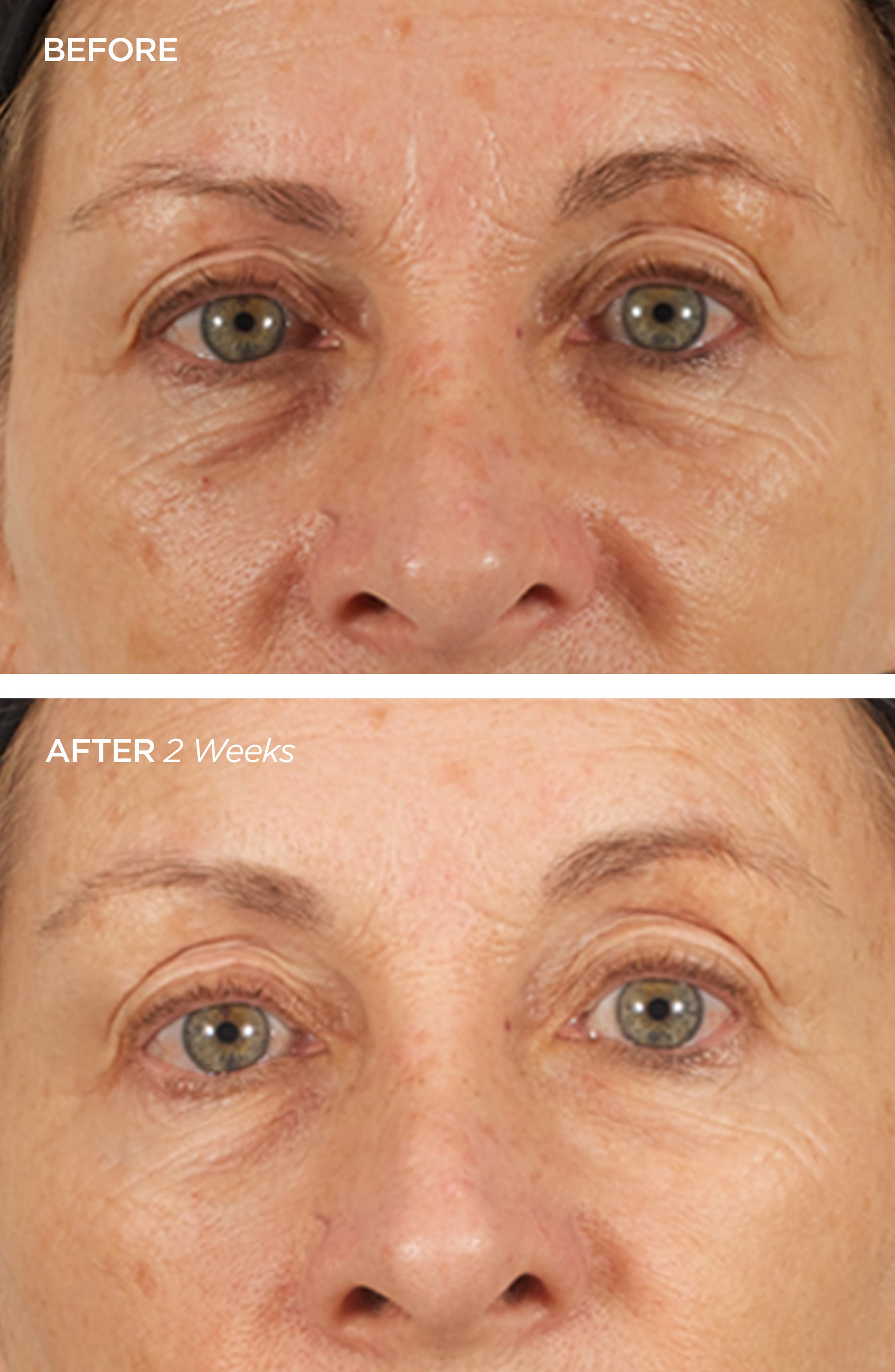 BEAUTYBIO, The Brightener Two-Part Cell Renewal Treatment, Alternate thumbnail 3, color, NO COLOR