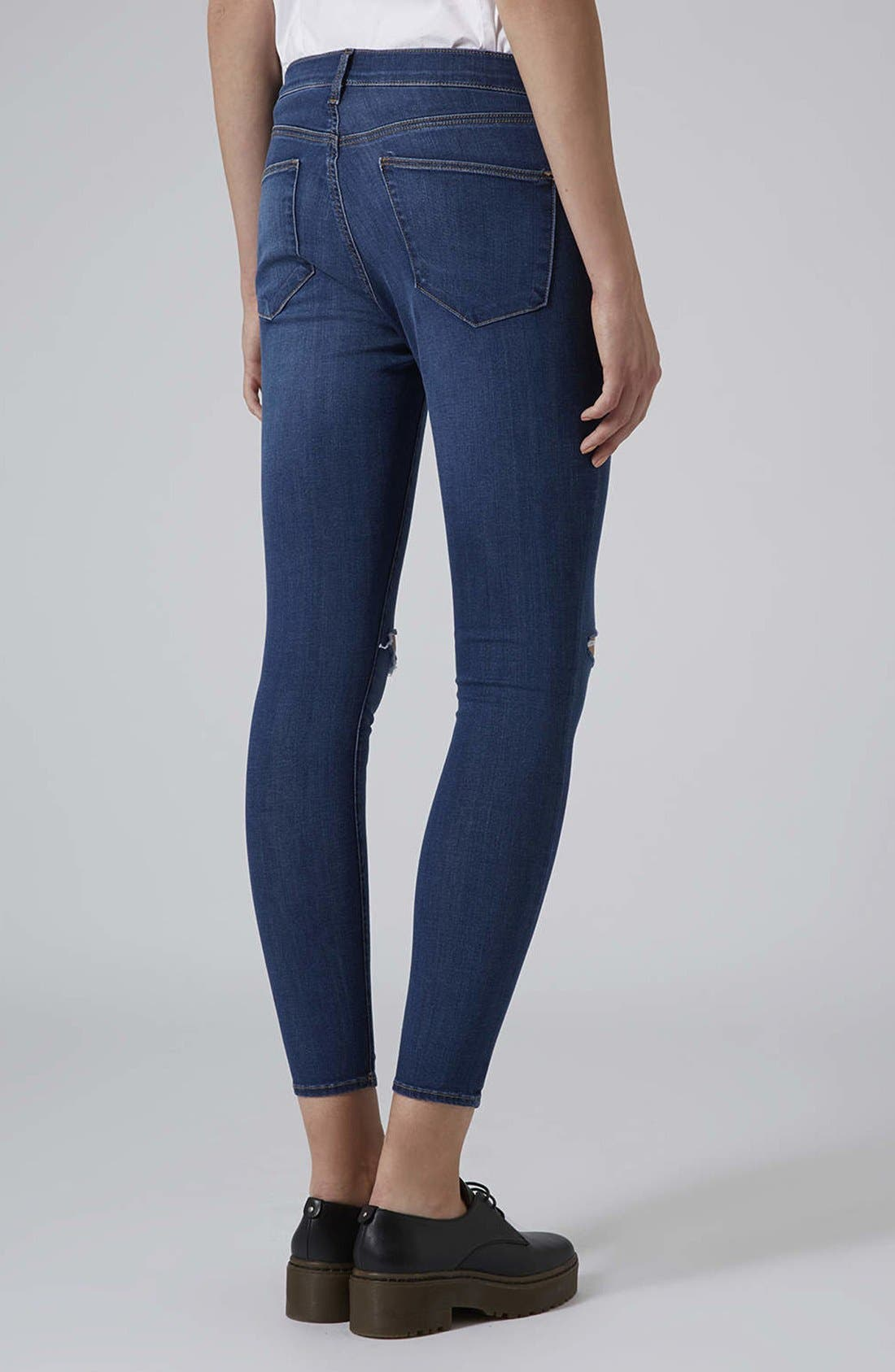 ,                             Moto 'Leigh' Vintage Ripped Jeans,                             Alternate thumbnail 5, color,                             400