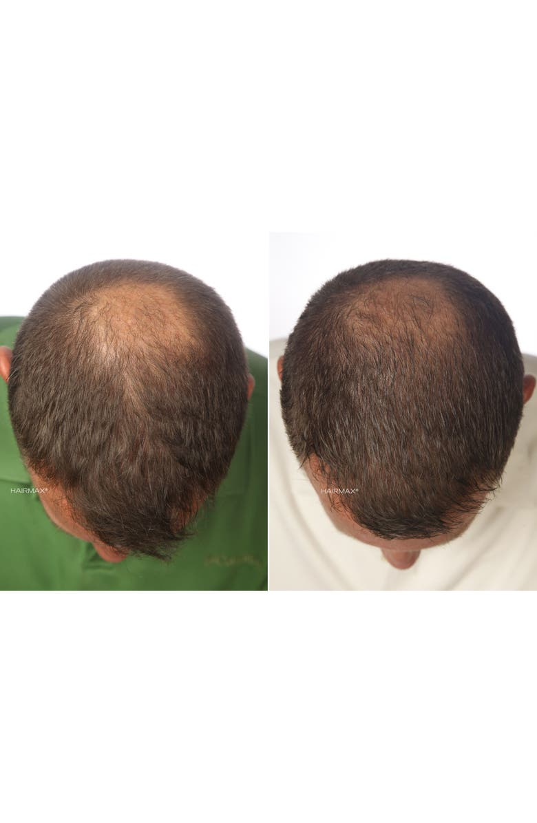 'laser Band 82' Laser Hair Regrowth System by Hairmax®