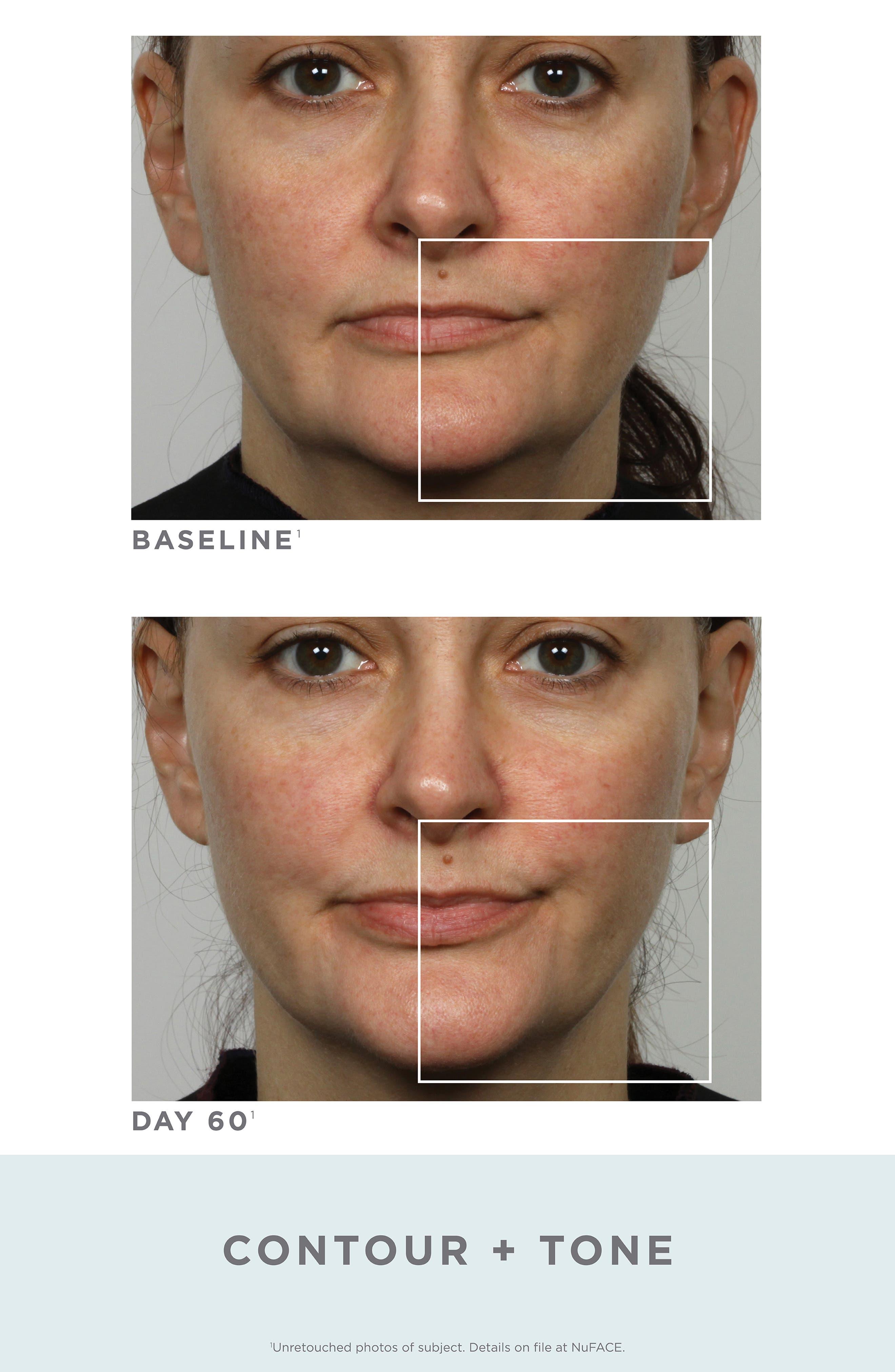 ,                             Trinity Facial Toning Device,                             Alternate thumbnail 4, color,                             NO COLOR