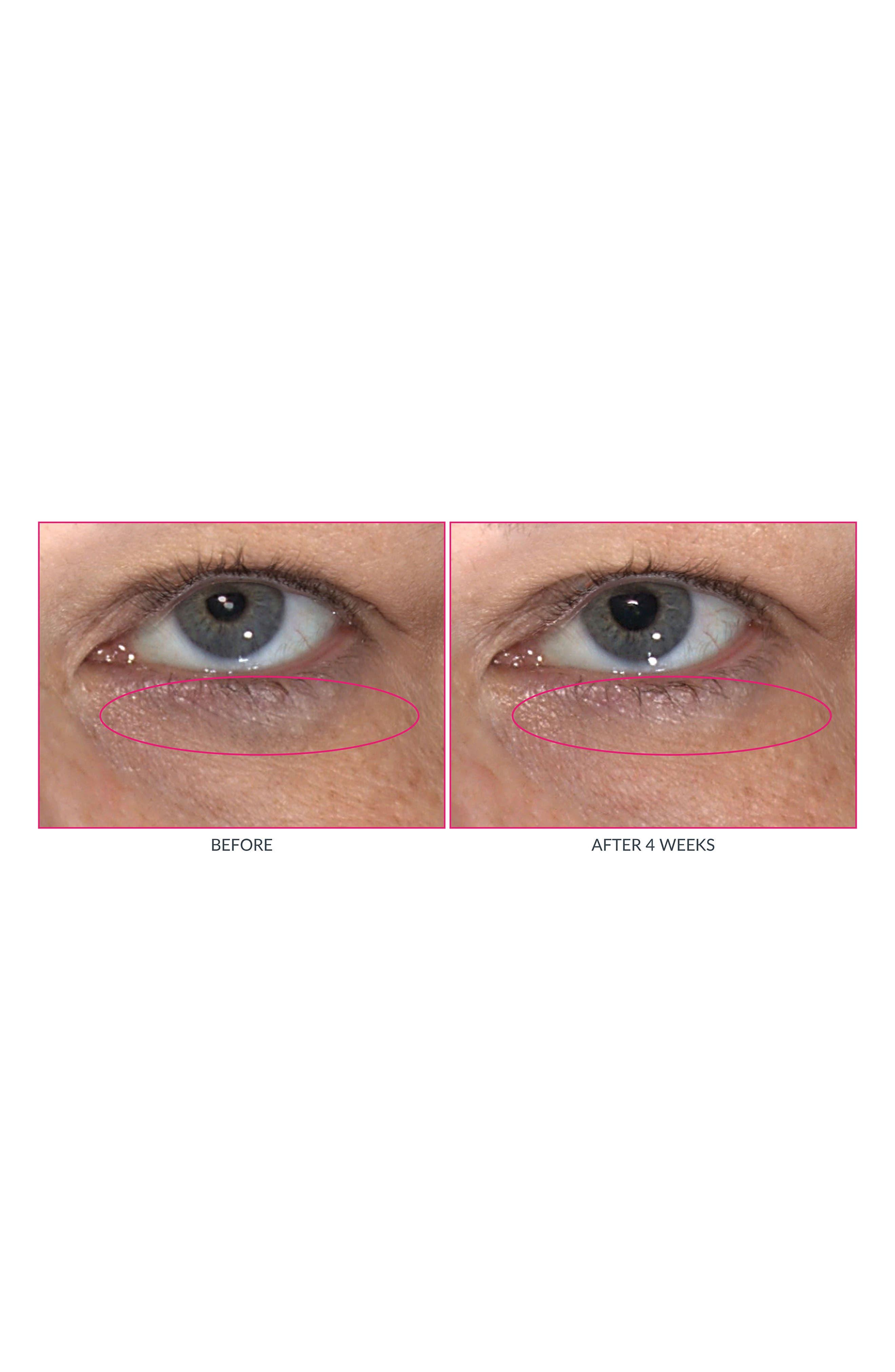 ,                             Wrinkle Warrior Eye Gel Visible Dark Circle Eraser,                             Alternate thumbnail 7, color,                             NO COLOR